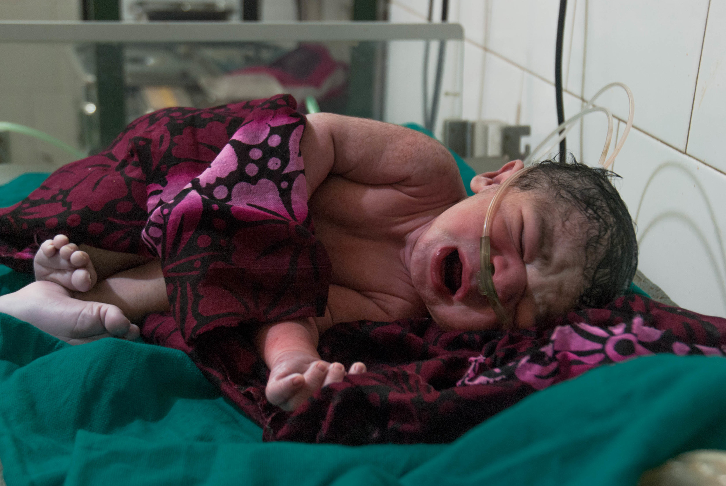 A newborn from a breech delivery cries out for his first breath of air.  Breech deliveries can be fatal for children not born with medical care.
