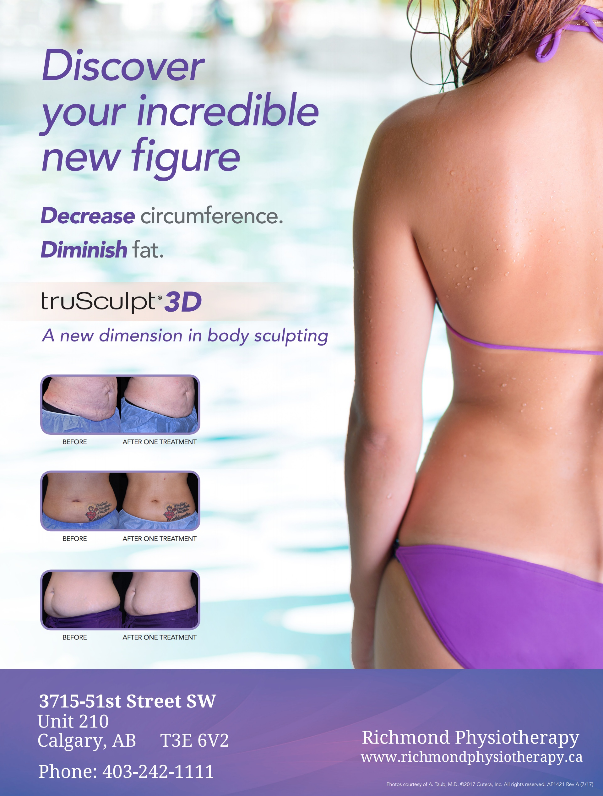 truSculpt 3D - A new dimension in body sculptingThe truSculpt® 3D body sculpting procedure takes a multi-dimensional approach to circumferential reduction and body sculpting by delivering a precise therapeutic temperatures to the subcutaneous adipose tissue in a unique way that gives patients the highest clinical efficacy in the shortest possible treatment time. This Targeted, Repeatable and Uniform approach ensures TRU 3D results are achieved.