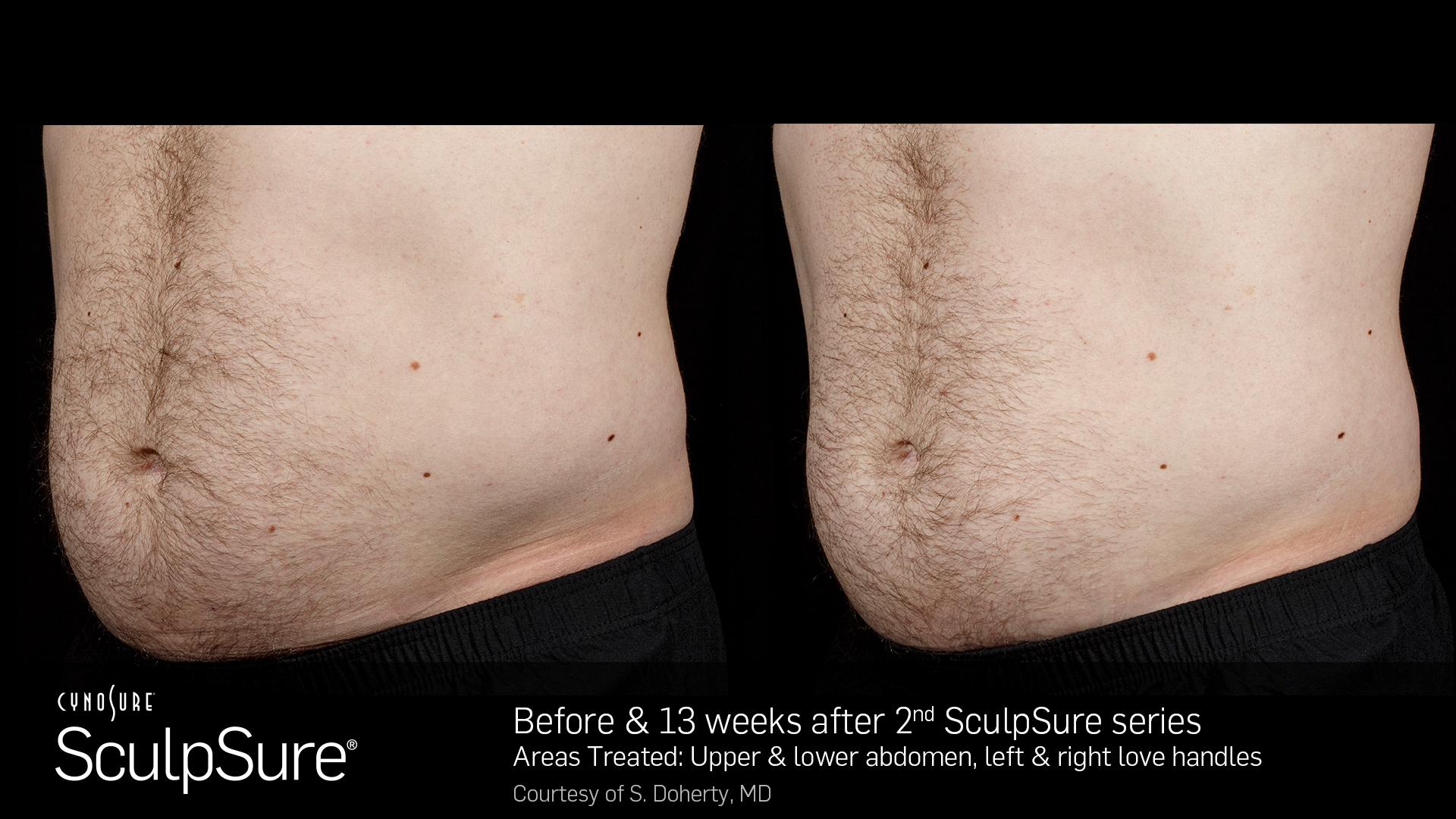 SculpSureBefore&After_SidebySide_Male6.jpg