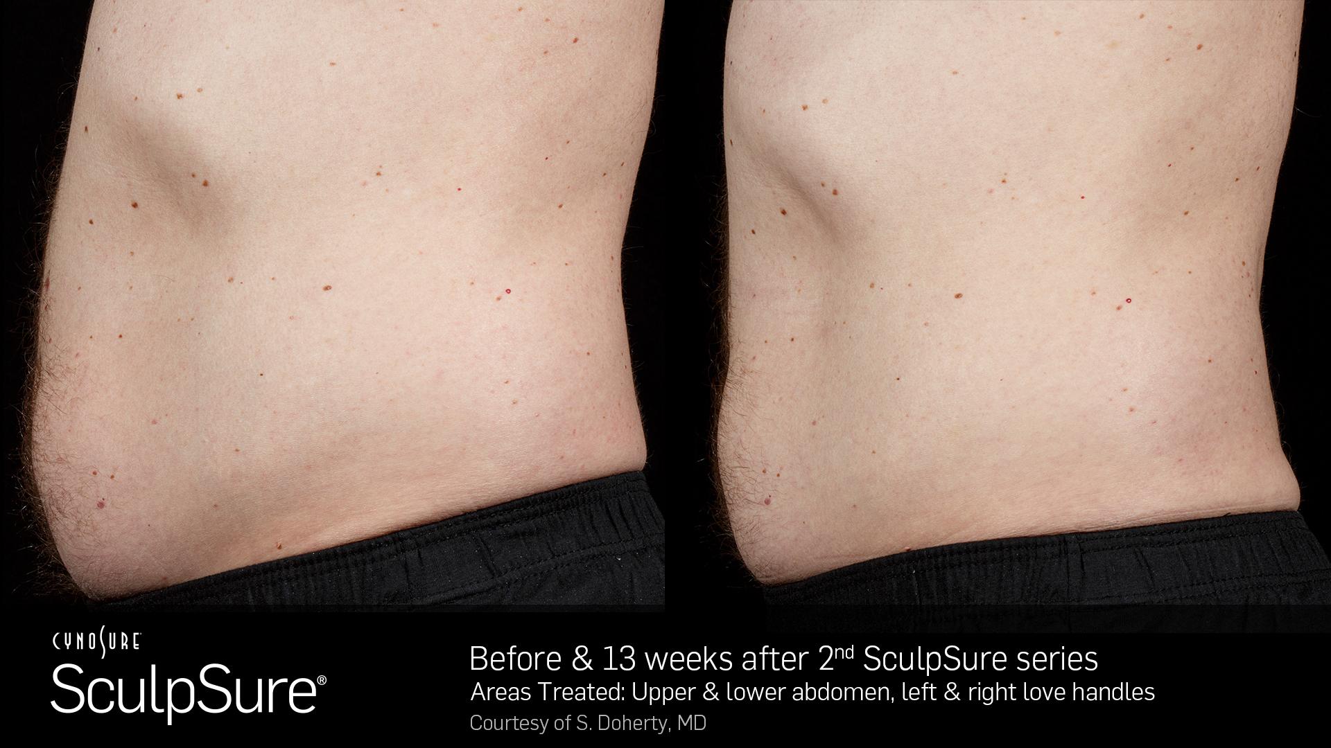 SculpSureBefore&After_SidebySide_Male4.jpg