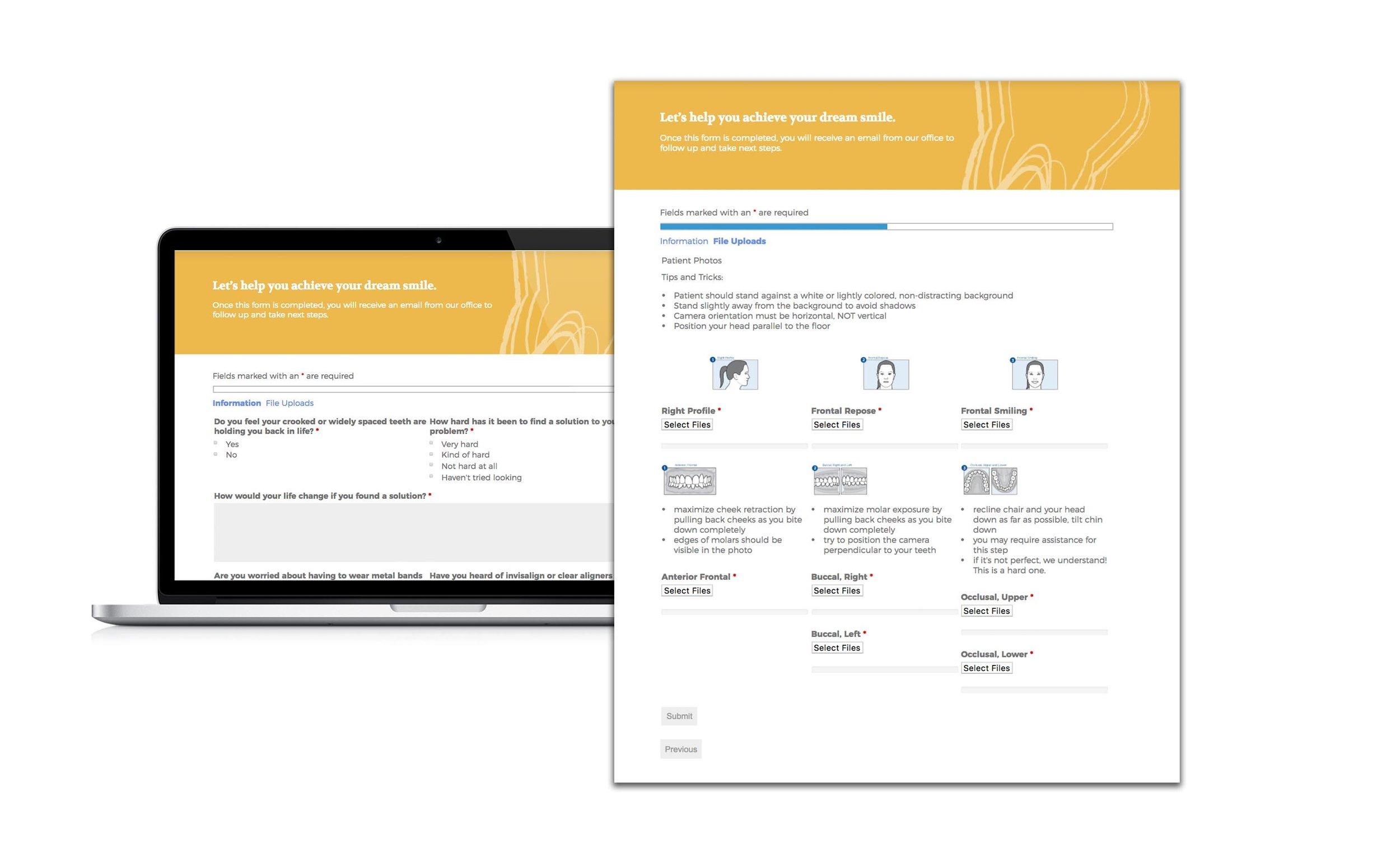 Online Invisalign Evaluation