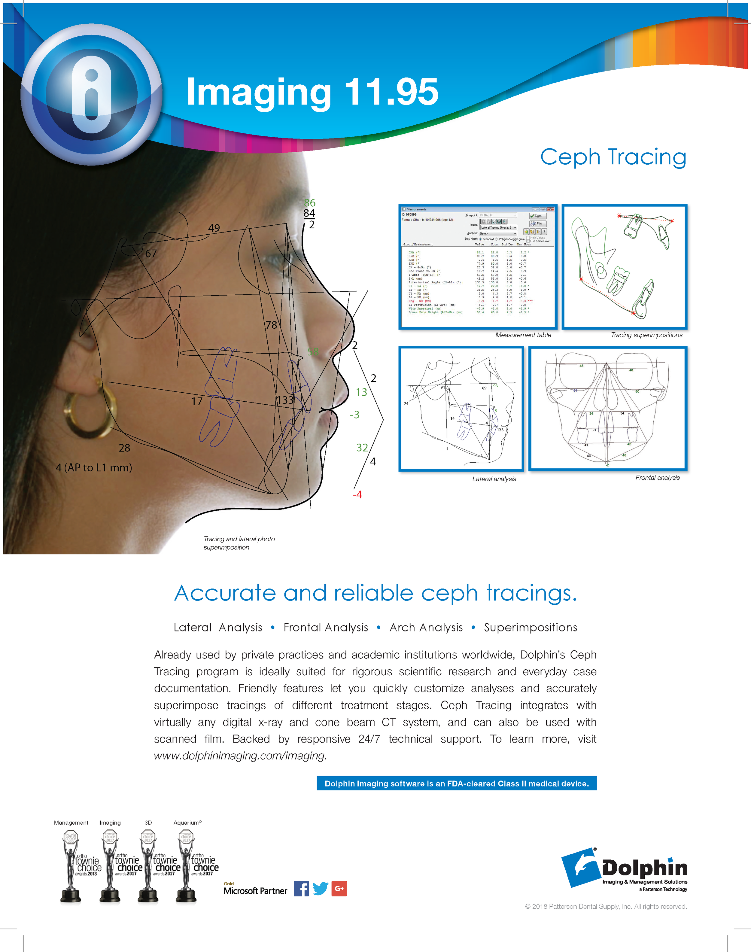 Ceph Tracing - Accurate and reliable ceph tracings.Lateral Analysis • Frontal Analysis • Arch Analysis • SuperimpositionsAlready used by private practices and academic institutions worldwide, Dolphin's Ceph Tracing program is ideally suited for rigorous scientific research and everyday case documentation. Friendly features let you quickly customize analyses and accurately superimpose tracings of different treatment stages. Ceph Tracing integrates with virtually any digital x-ray and cone beam CT system, and can also be used with scanned film. Backed by responsive 24/7 technical support. To learn more, visit www.dolphinimaging.com/imaging.