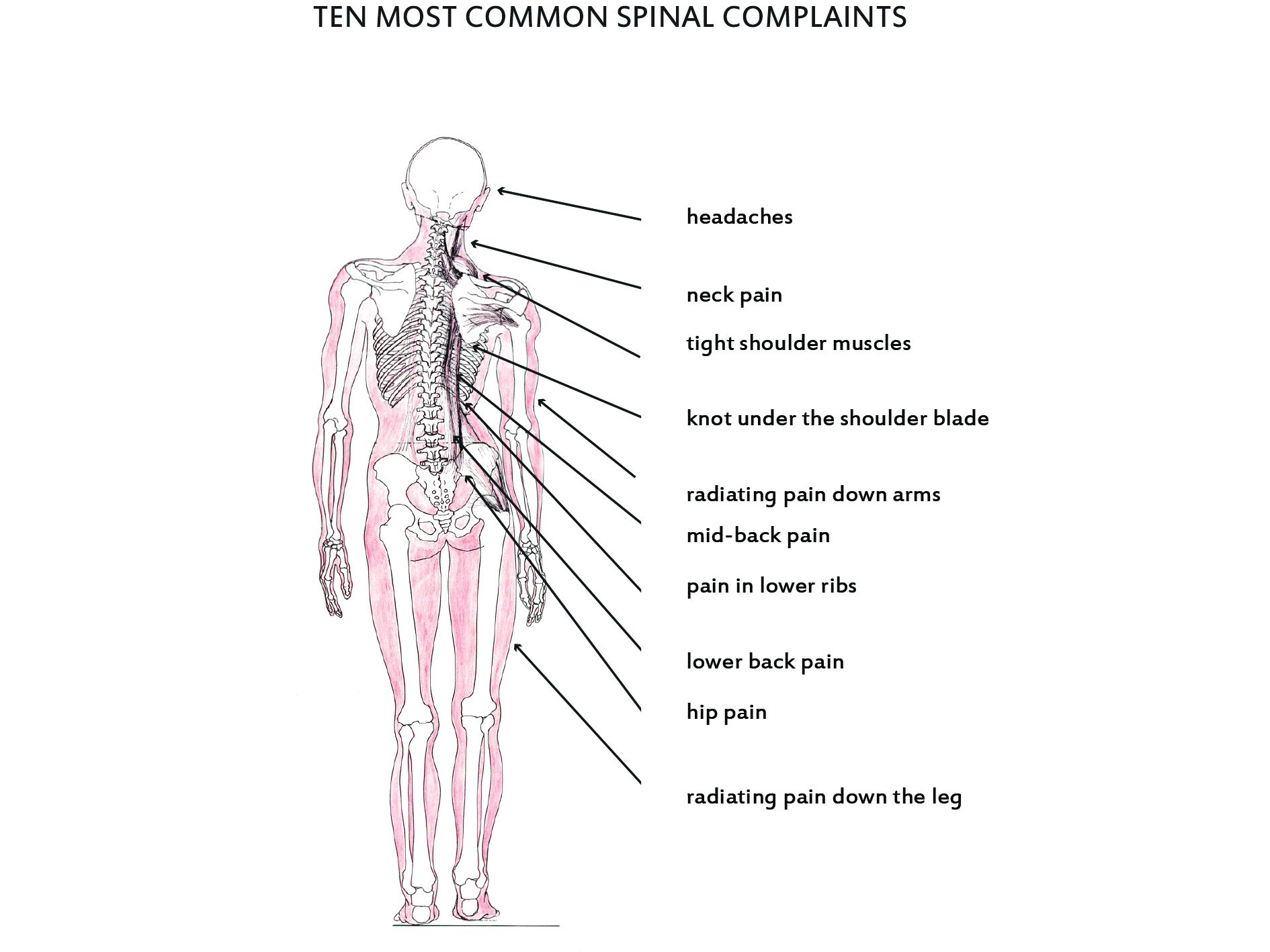 A misaligned spine with the 10 most common areas of spinal complaint - Straight Spine Chiropractic Courtenay Campbell River