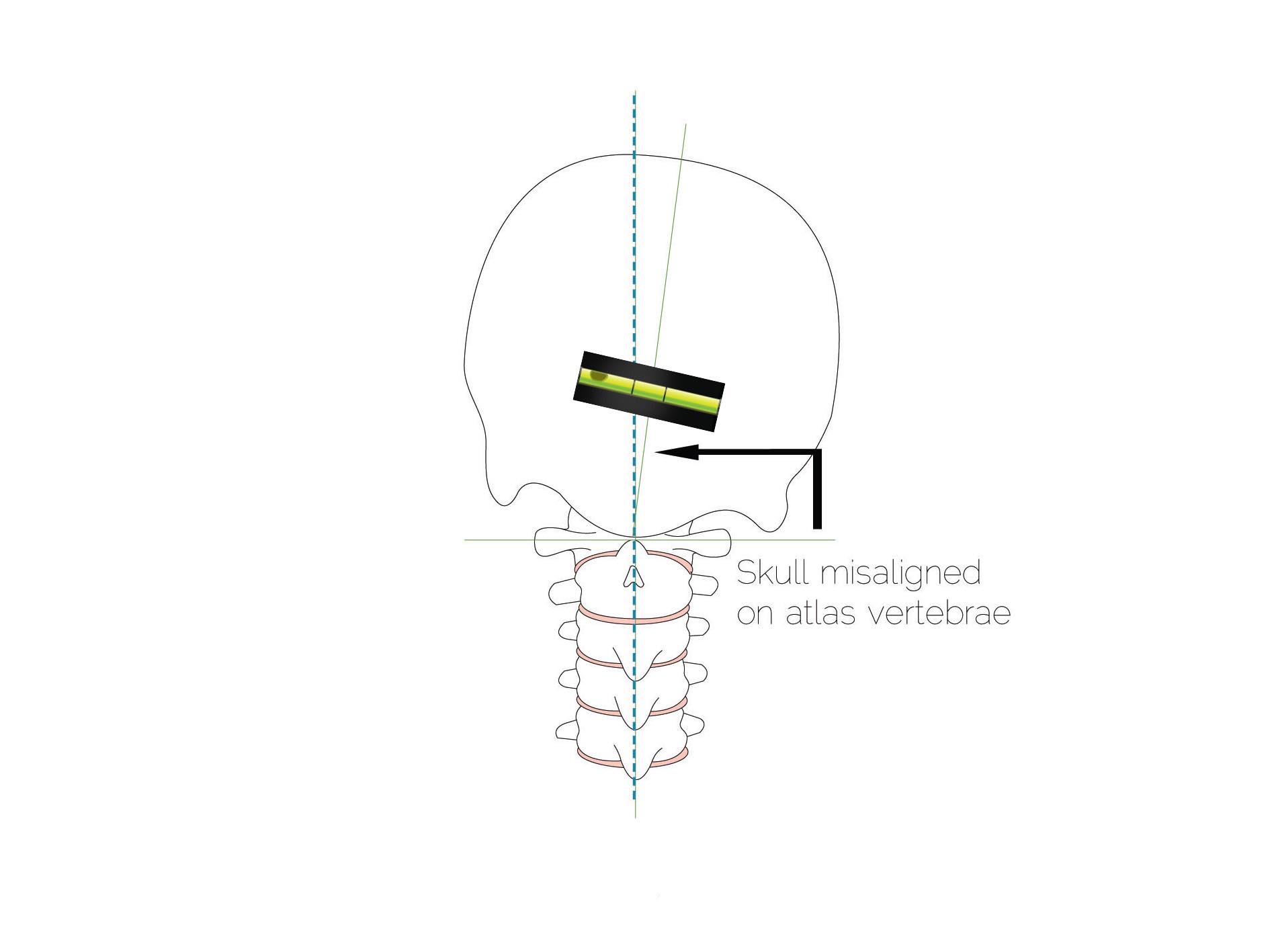 Skull misaligned on atlas vertebrae - Straight Spine Chriropractc, Courtenay and Campbell River