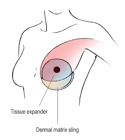 Breast Reconstruction Tissue Expander Acellular Dermal Matrix ADM