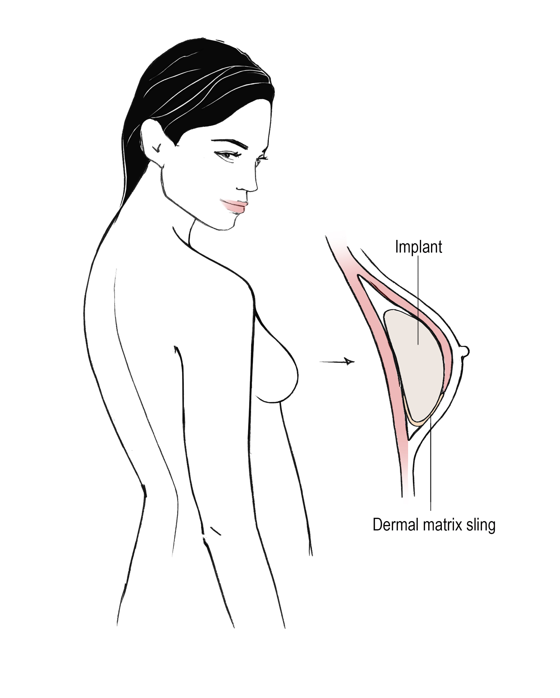 Tissue Expander to Implant Breast Reconstruction