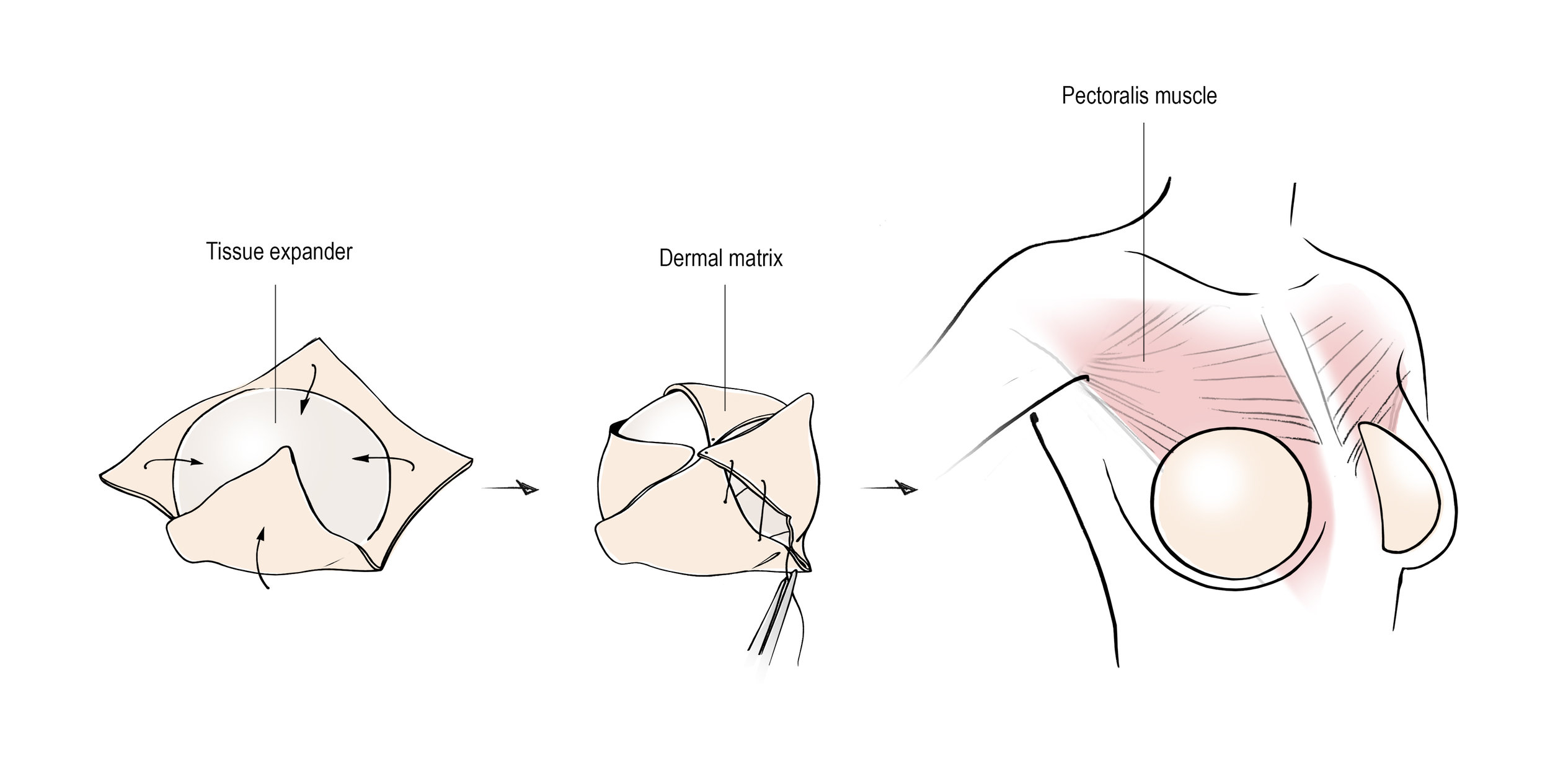 Prepectoral Tissue Expander Placement