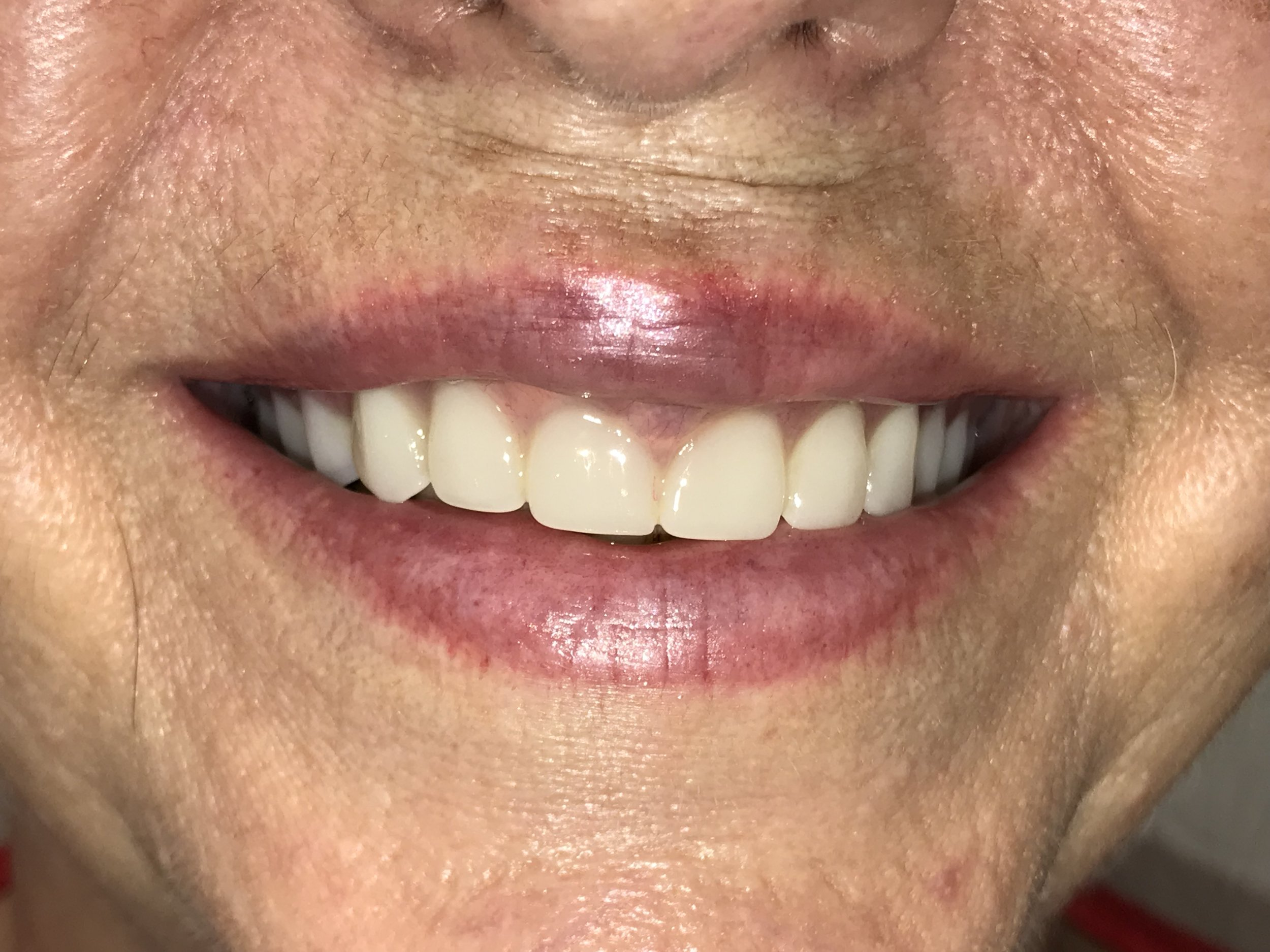 After Cosmetic Dental Treatment
