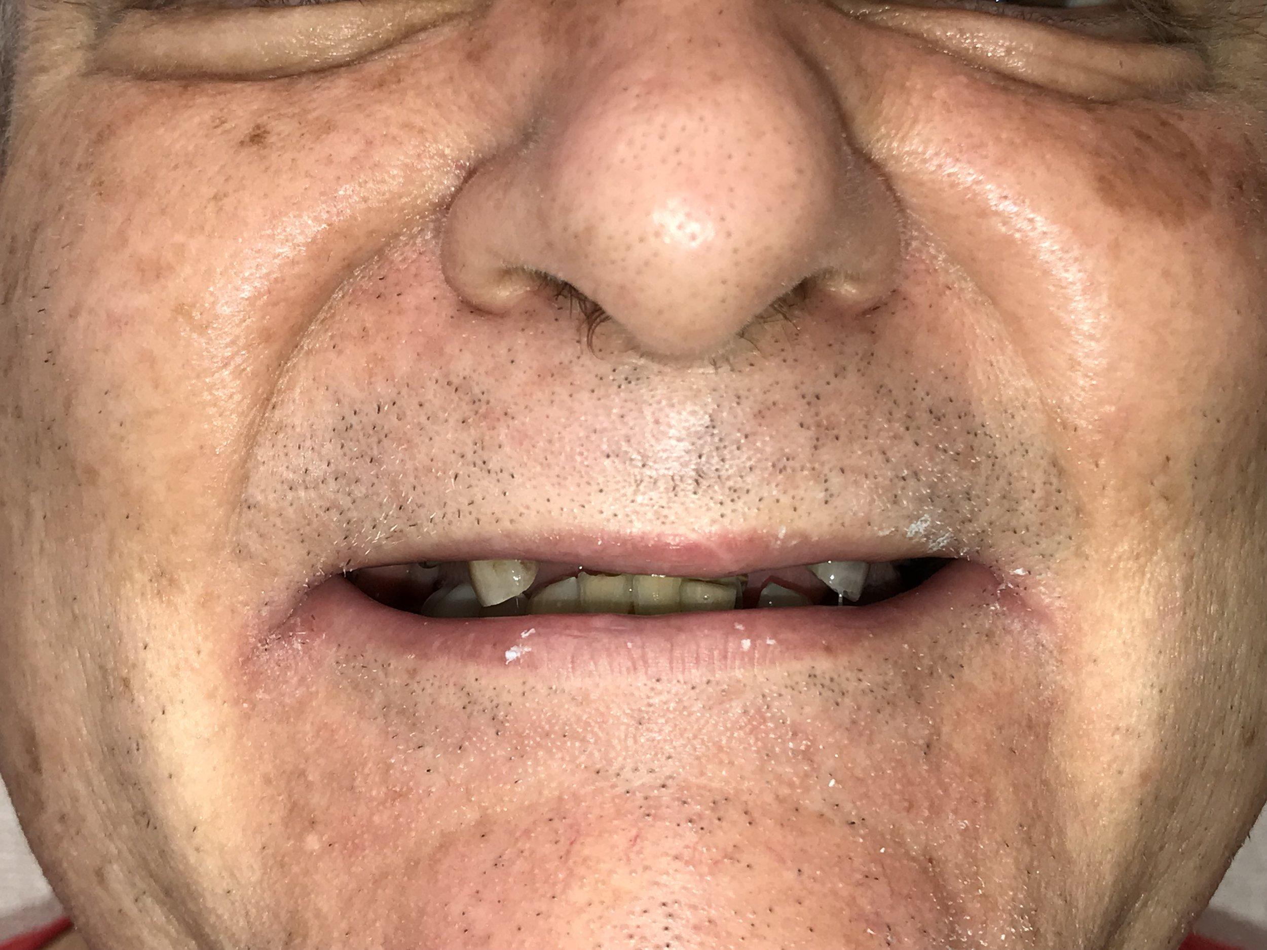 Before Cosmetic Dental Work
