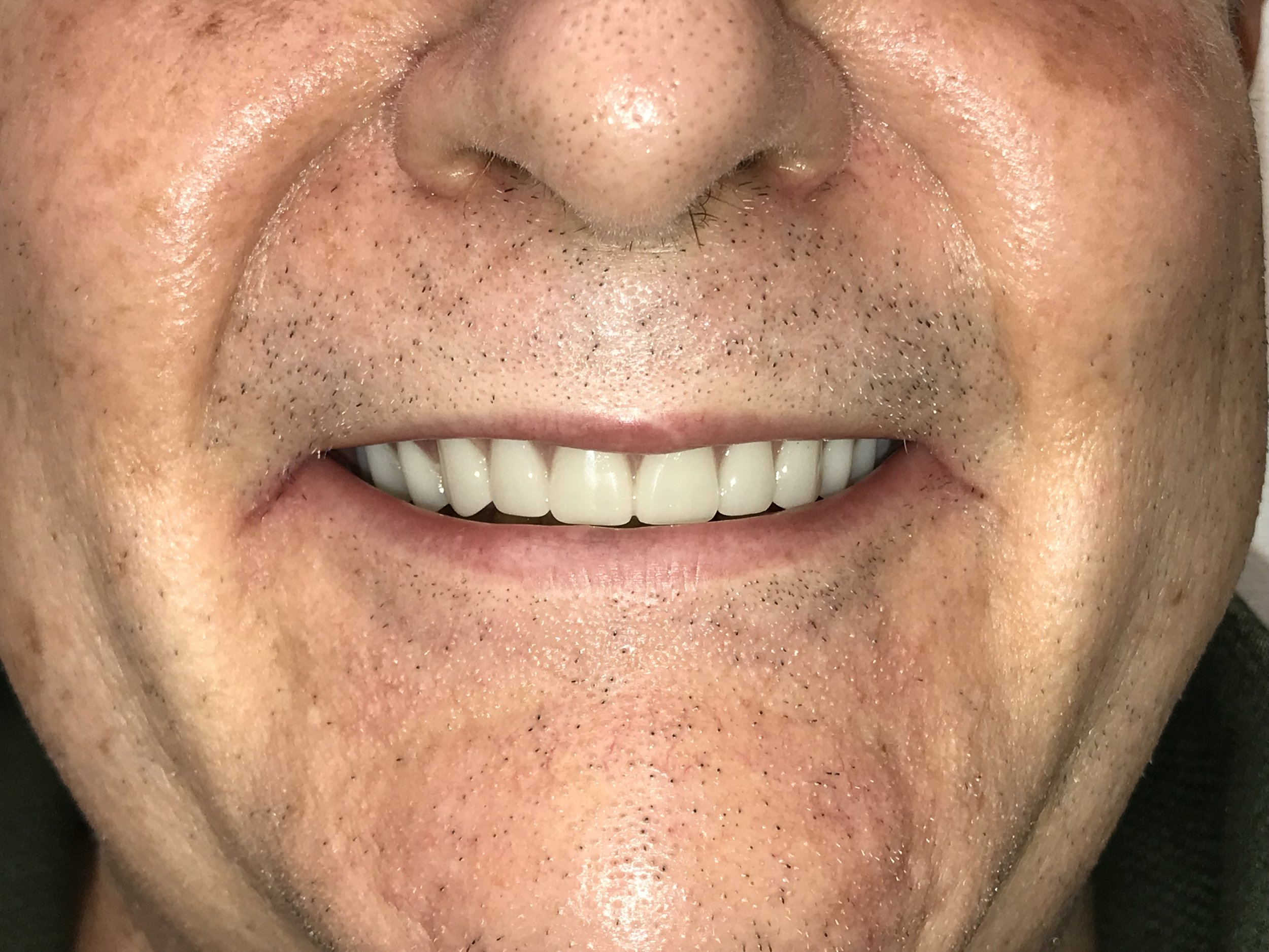 After Cosmetic Dental Work
