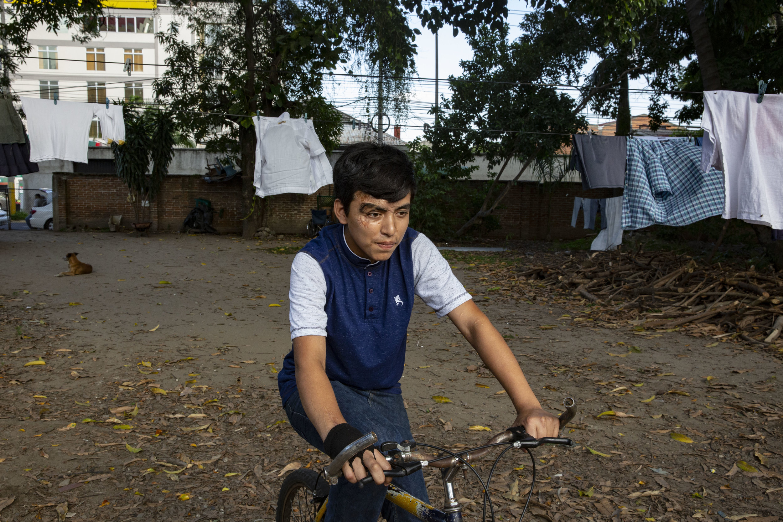 Christian Velasquez, he had several surgical operations after an car accident in 2012. Here in its bike in the courtyard of his house in San Pedro Sula, Honduras. He recevied extensive help from the Ruth Paz fundation.