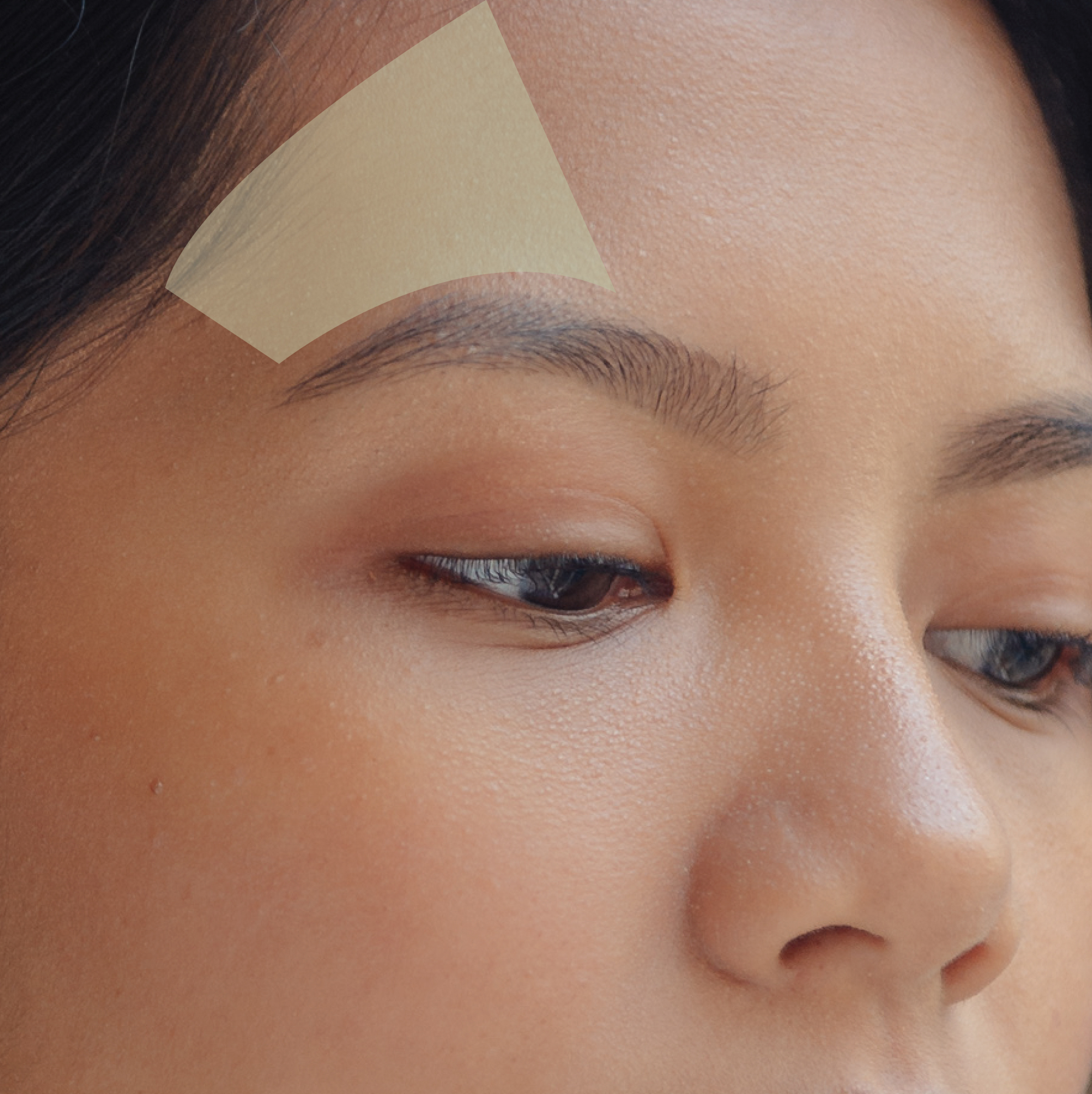 Browlift - Looking tired even if you're not? That's probably because of the droopy eyebrows. Lift the skin back to its youthful position with Ultherapy Browlift.Introductory price: Php 15, 000Regular price: Php 20, 000
