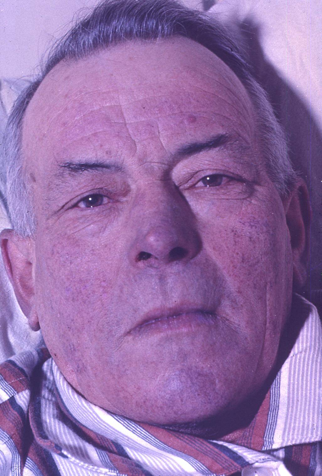 Hipertensión / Hipertensión azul  Agfacolor 35 mm film  c.1975