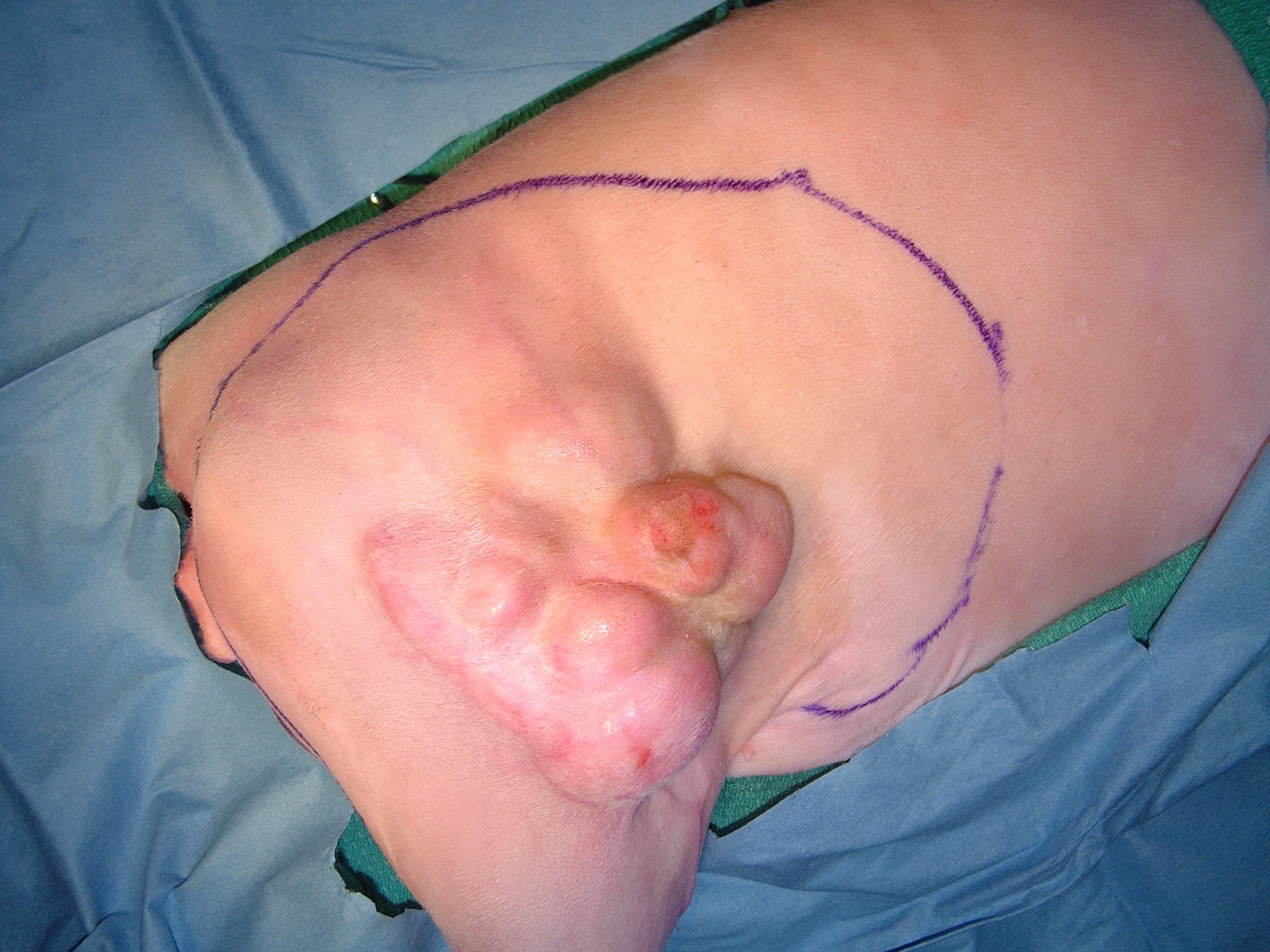 Pelvic limb ISS