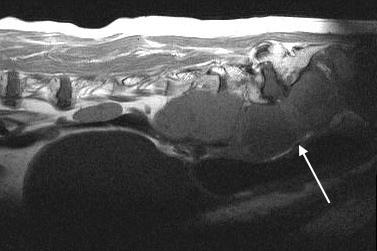 MRI - Sublumbar LN Metastasis