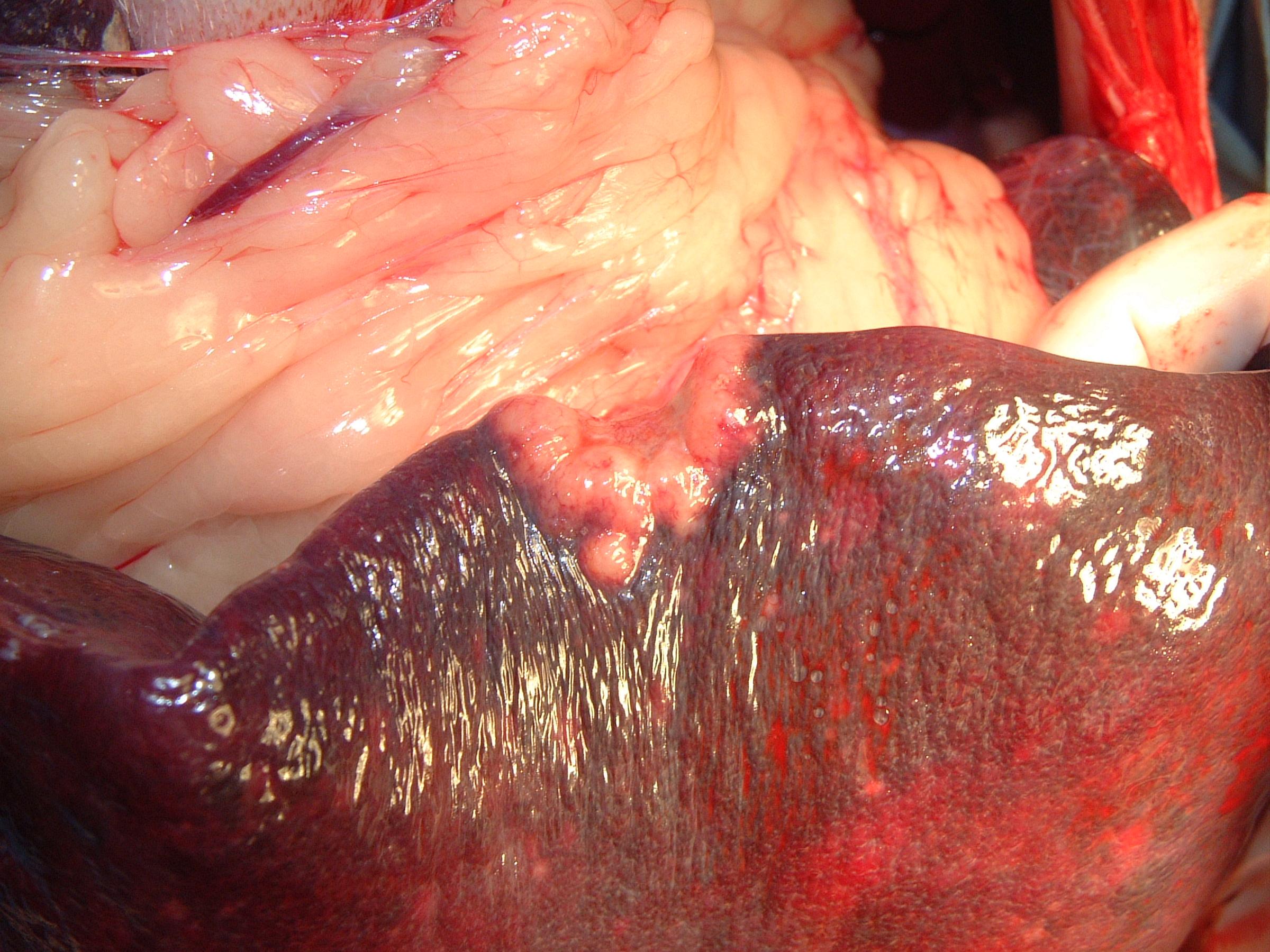 Spleen Metastasis