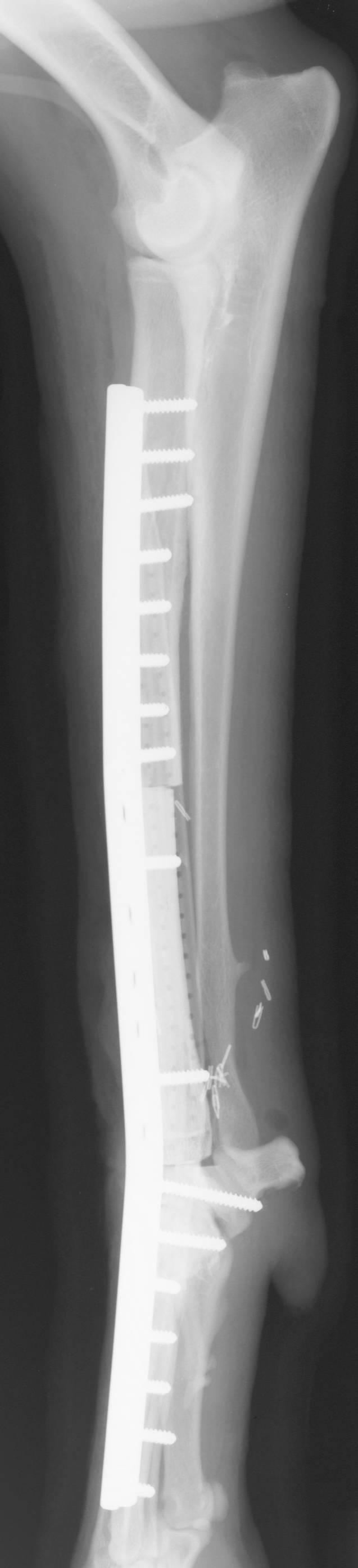 Cortical Allograft Limb-Sparing Surgery