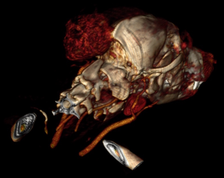 Skull OSA Reconstructed CT Scan
