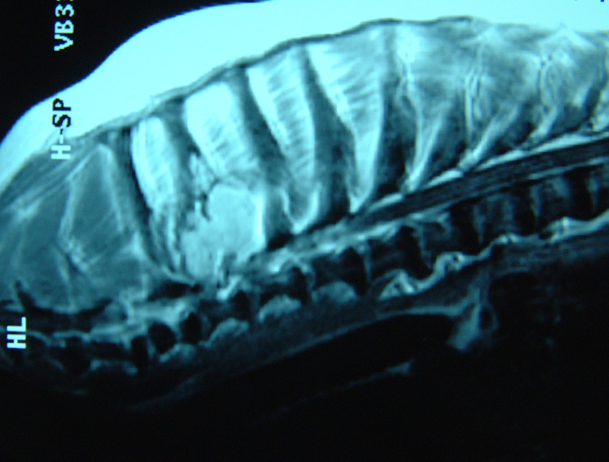 MRI - T2 Osteosarcoma