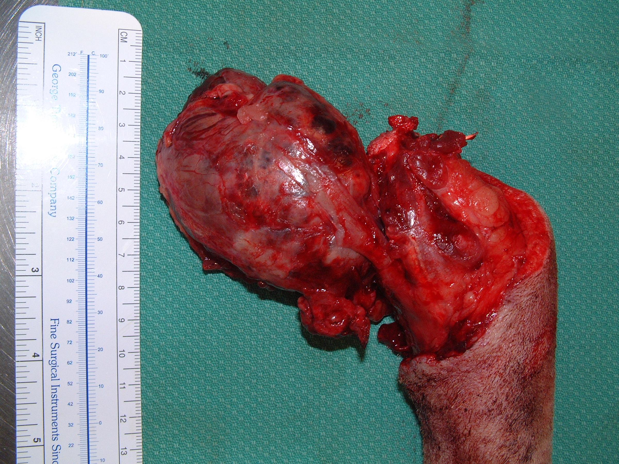 Caudal Vertebral Osteosarcoma