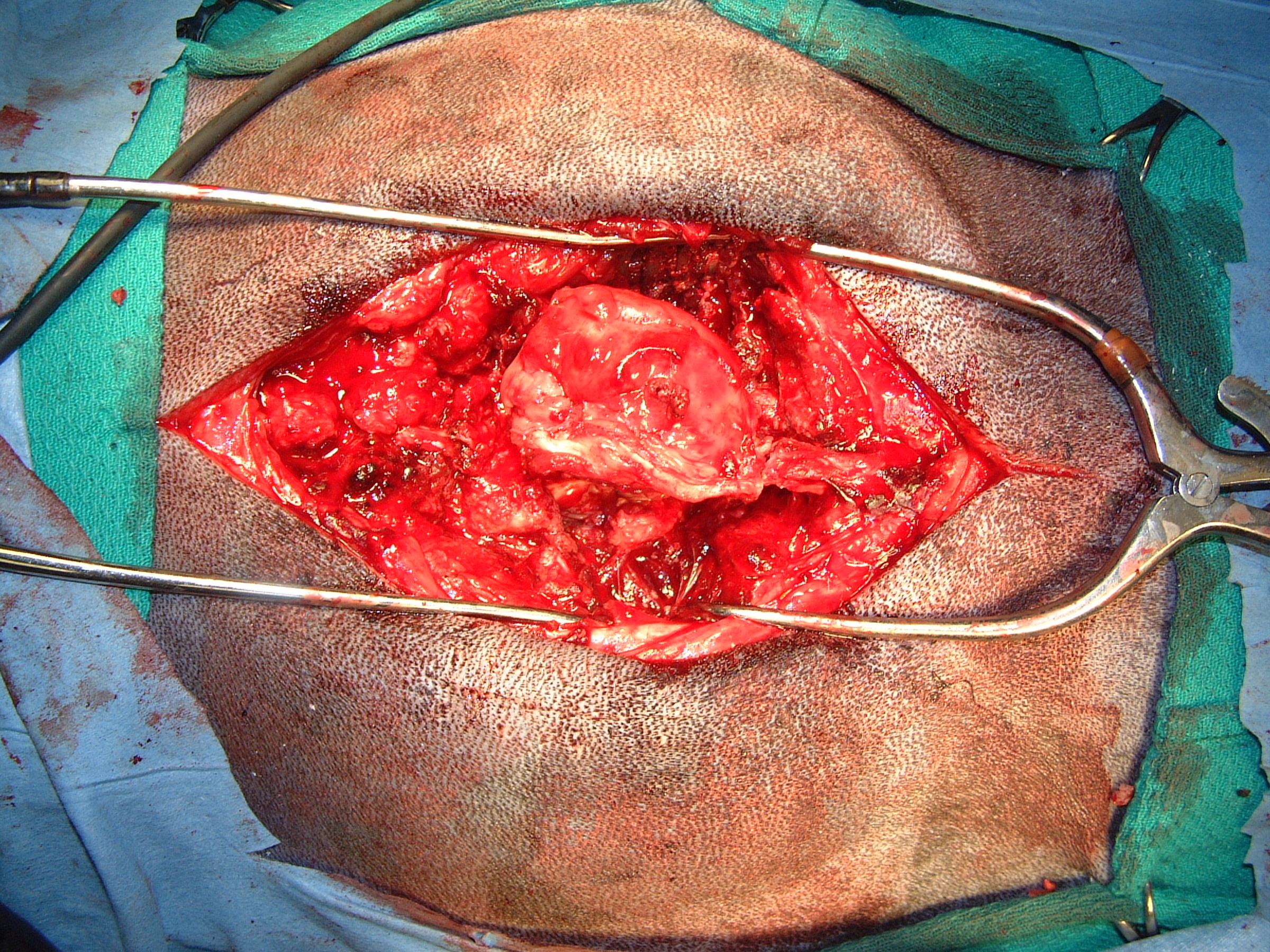 Thoracic Osteochondroma