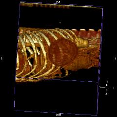 Reconstructed CT - Rib Osteosarcoma