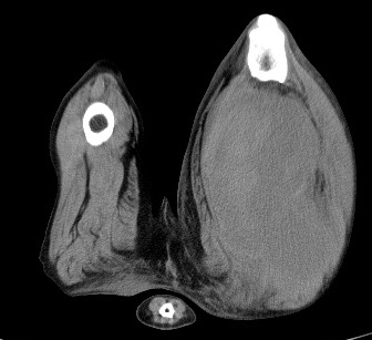 CT - Muscle Hemangiosarcoma