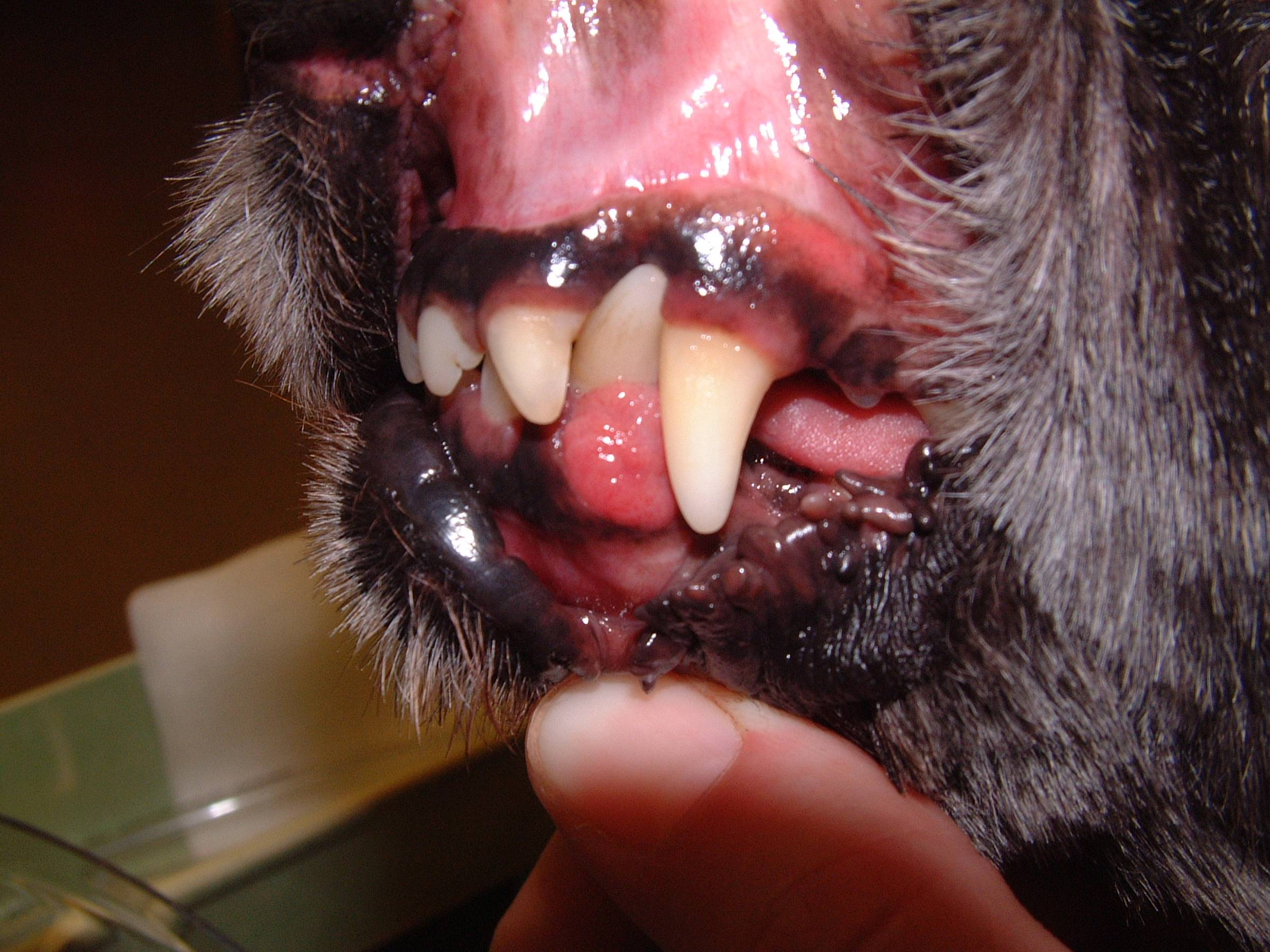 Acanthomatous Ameloblastoma