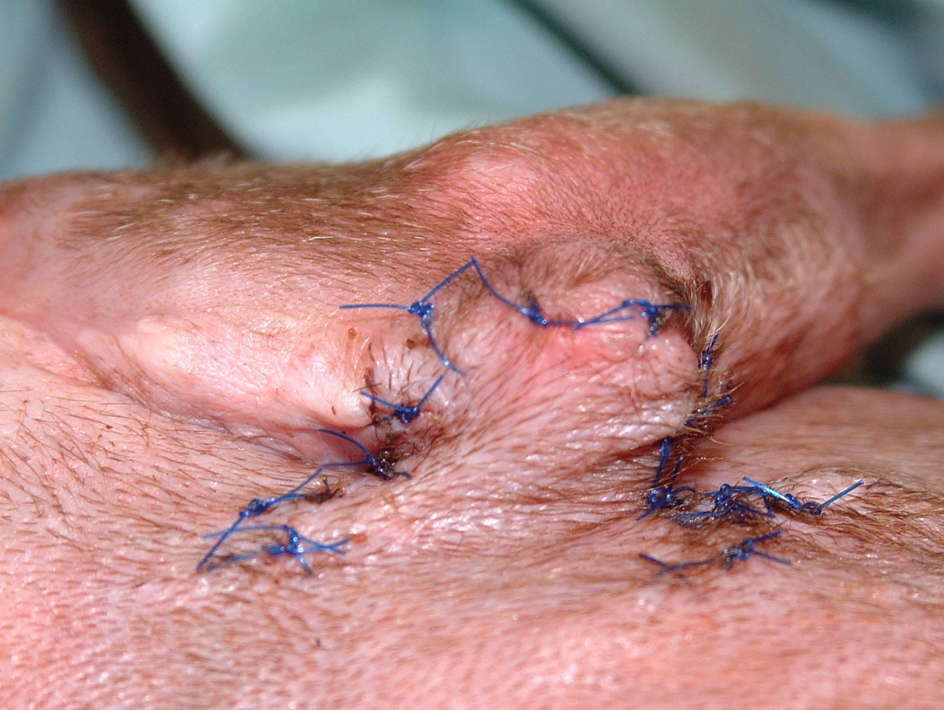 Surgery #2 - Hinge Flap Release