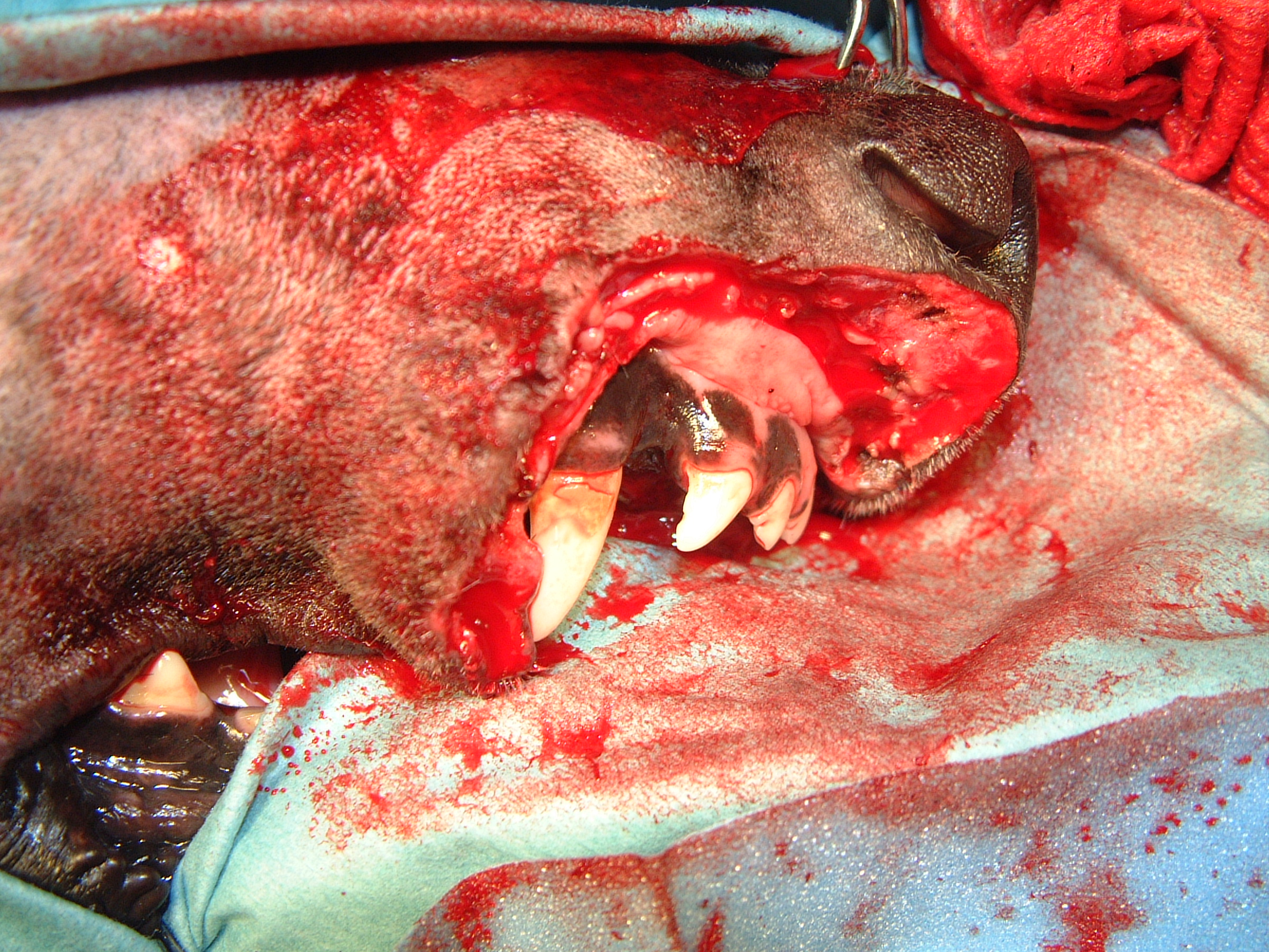 Intraoperative - Post Resection