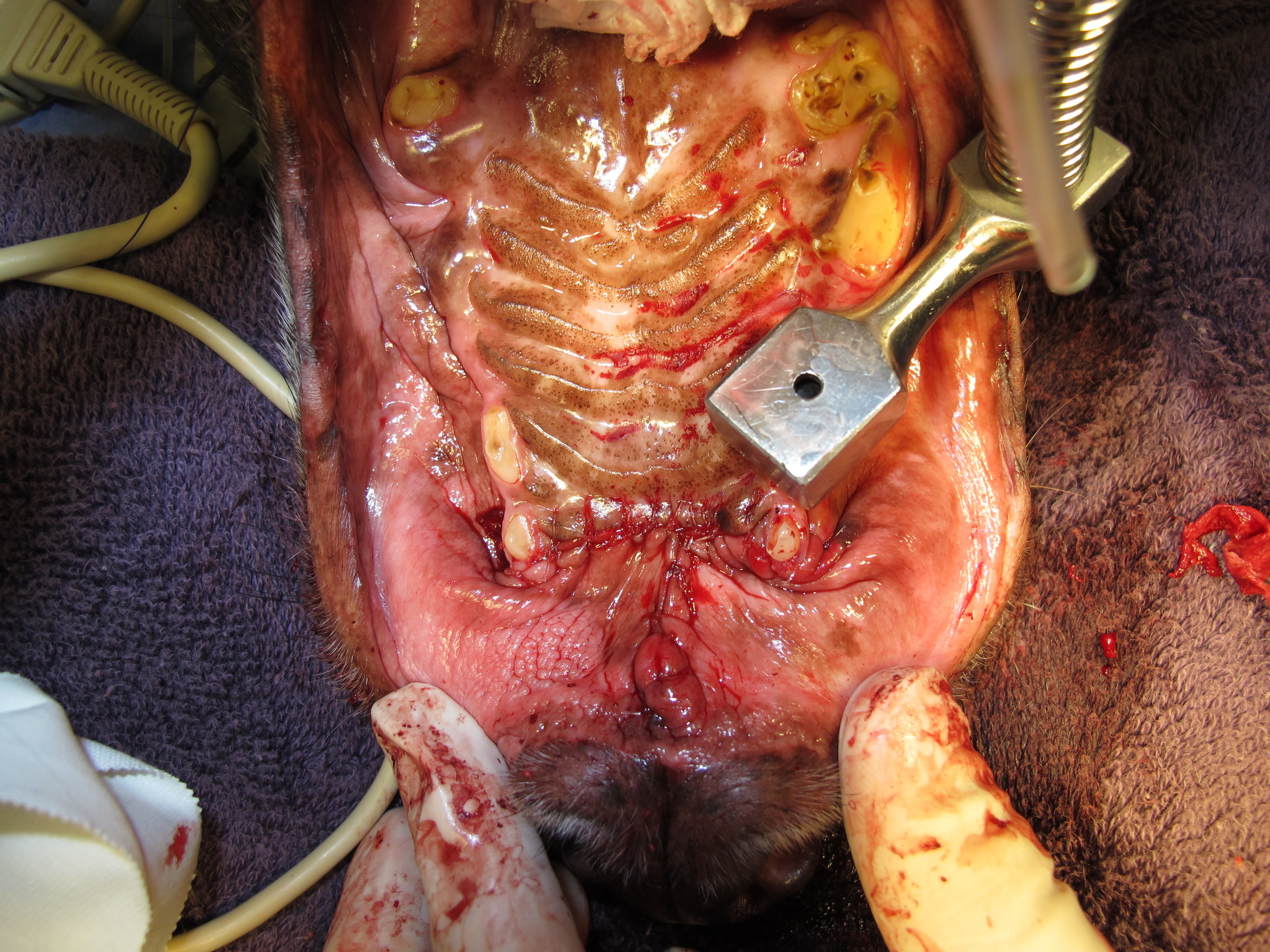 BILATERAL ROSTRAL MAXILLECTOMY