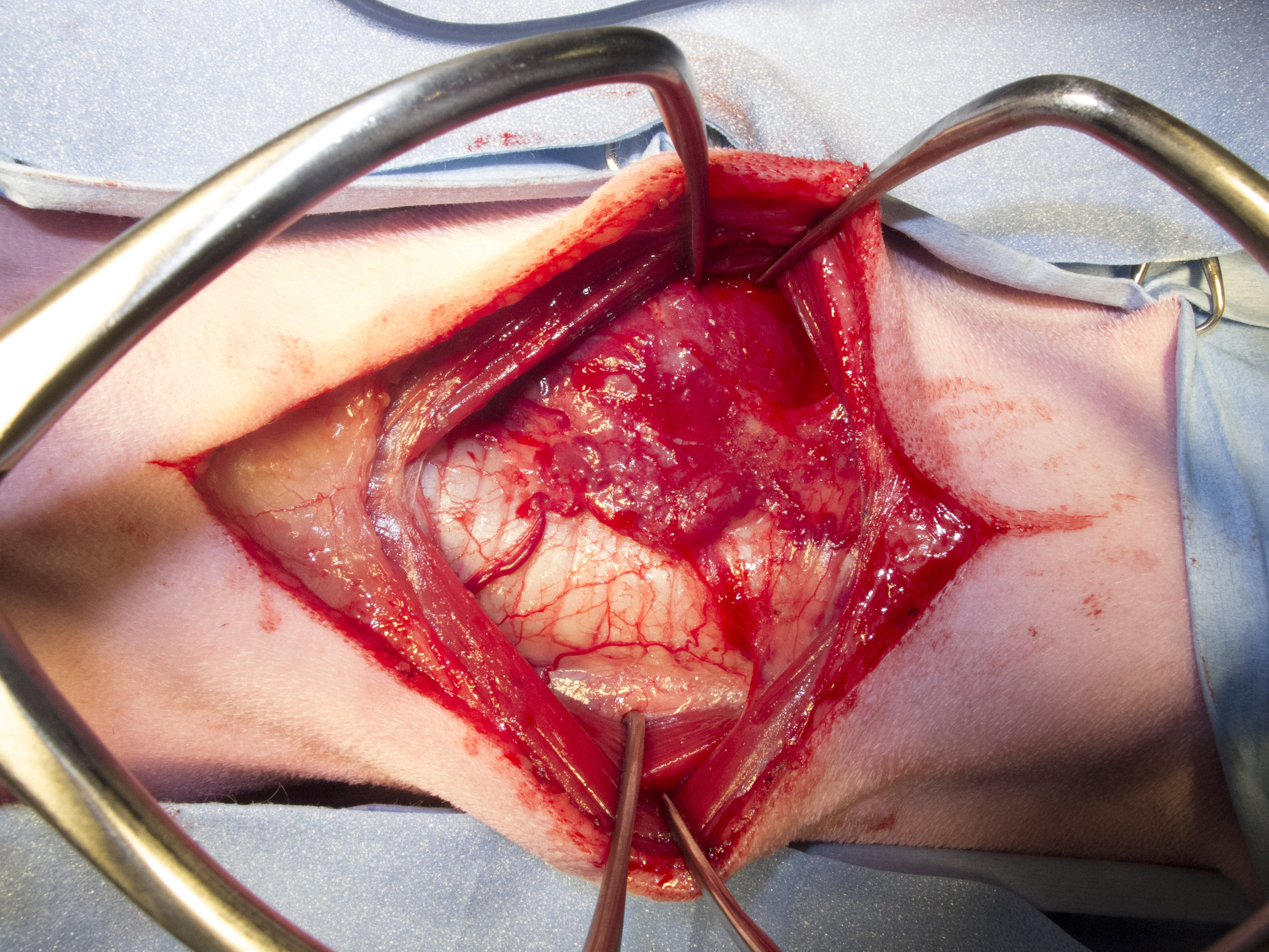 Vascular Carcinoma