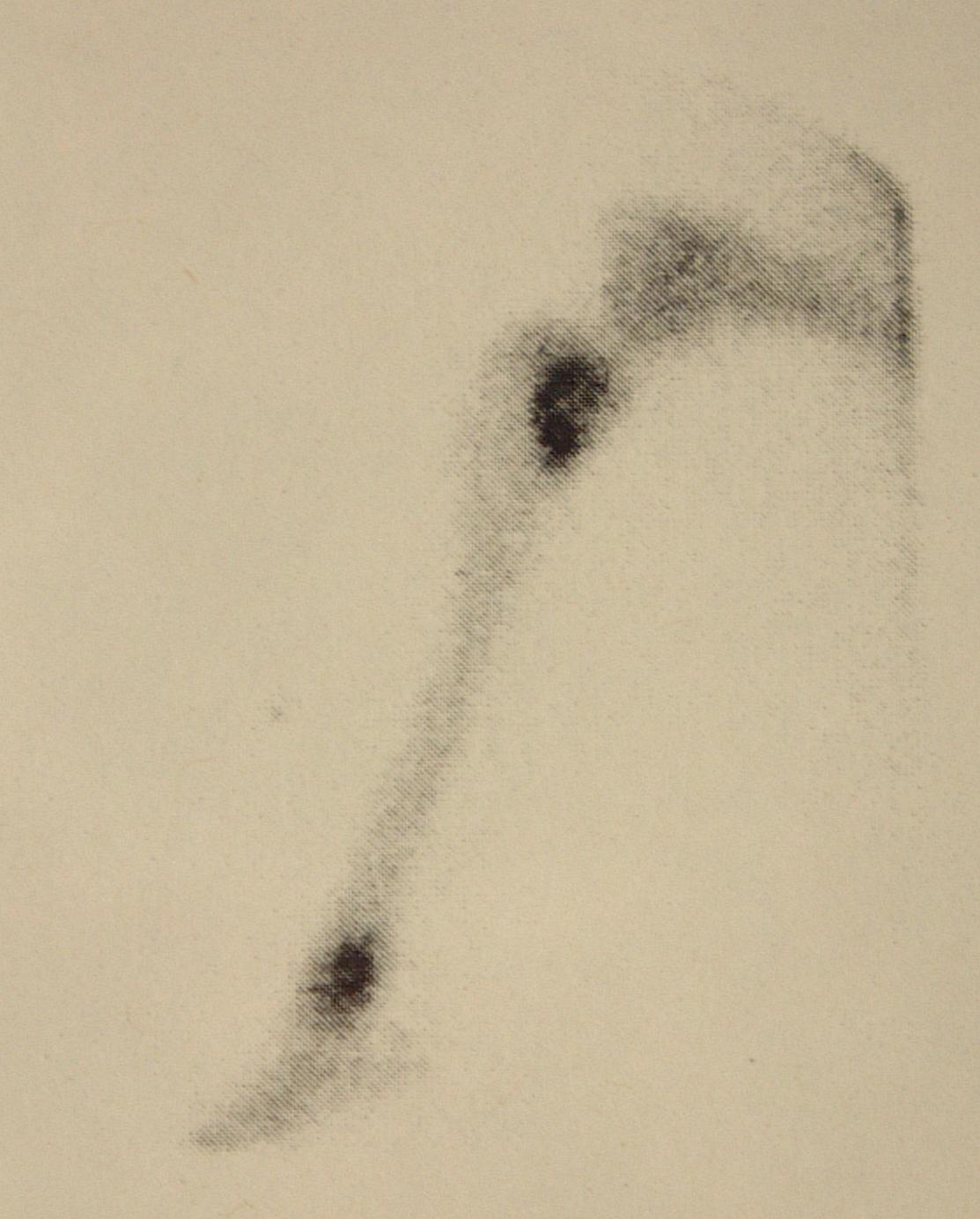 Bone Scan - Tibial Metastasis (OSA)