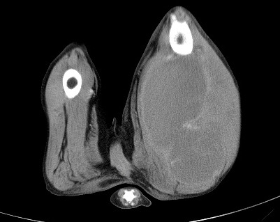 CT - Intramuscular HSA