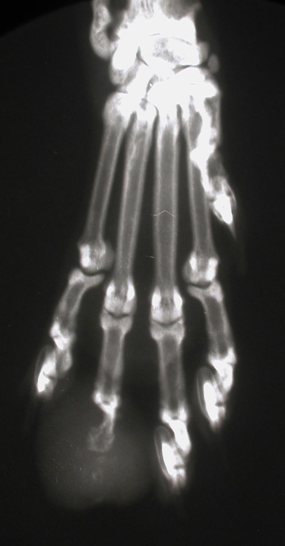 Acrometastasis - P3 Lysis (Courtesy Dr. Paolo Buraccoo)