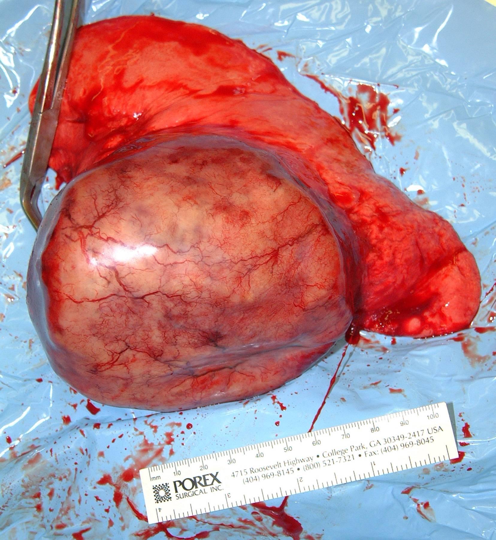 Primary Lung Carcinoma - Dog