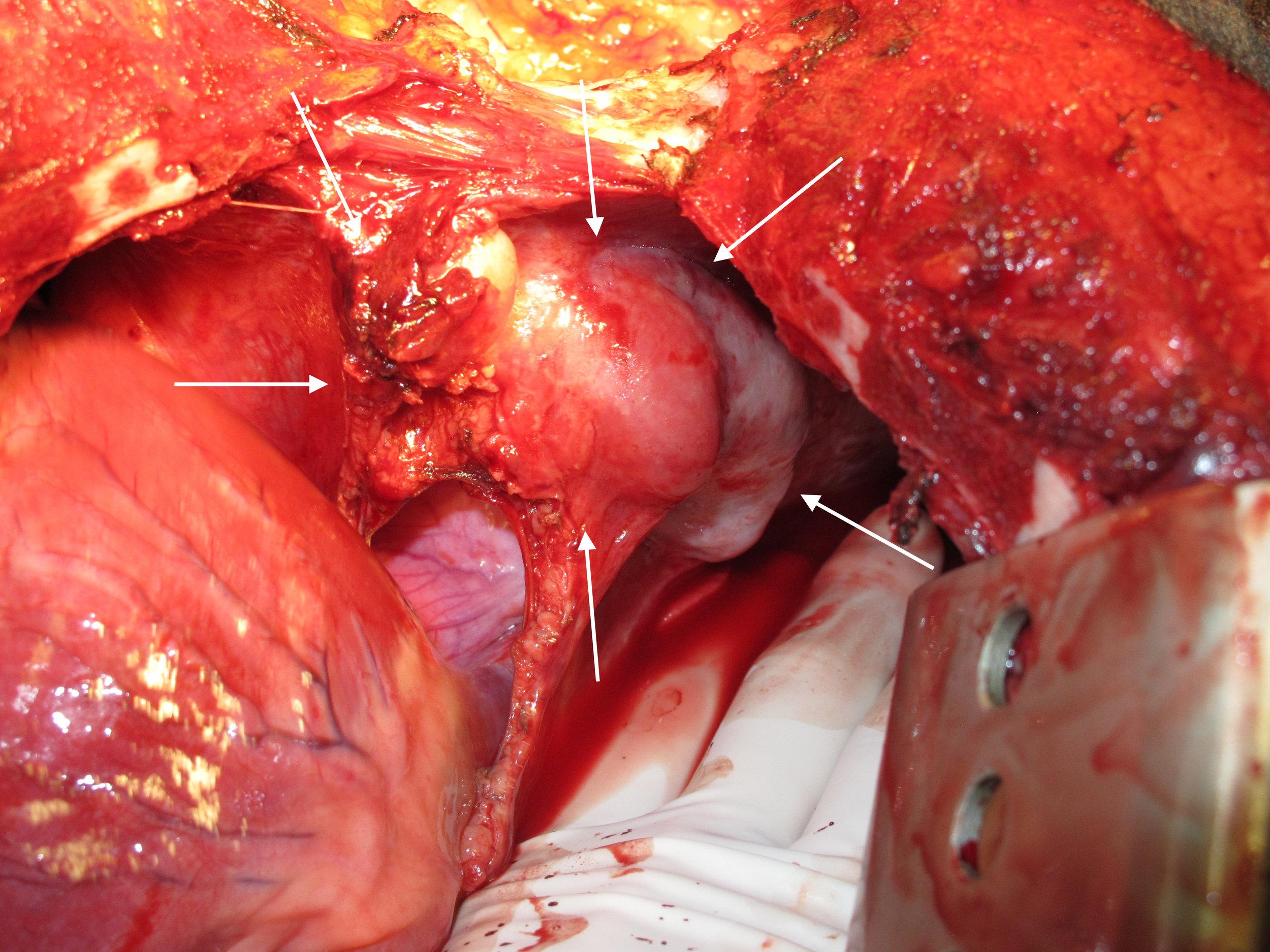Invasive Thymoma - Diaphragm