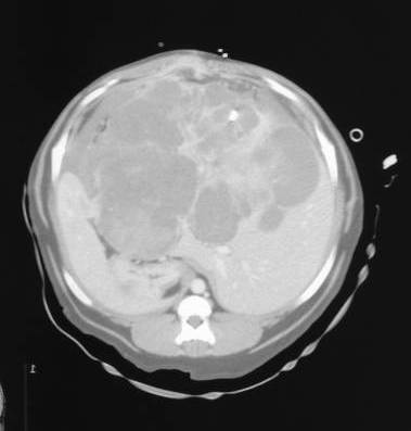 A contrast-enhanced CT scan of a massive HCC. This appeared unresectable on CT scan, but was resected following evaluation during an exploratory celiotomy.