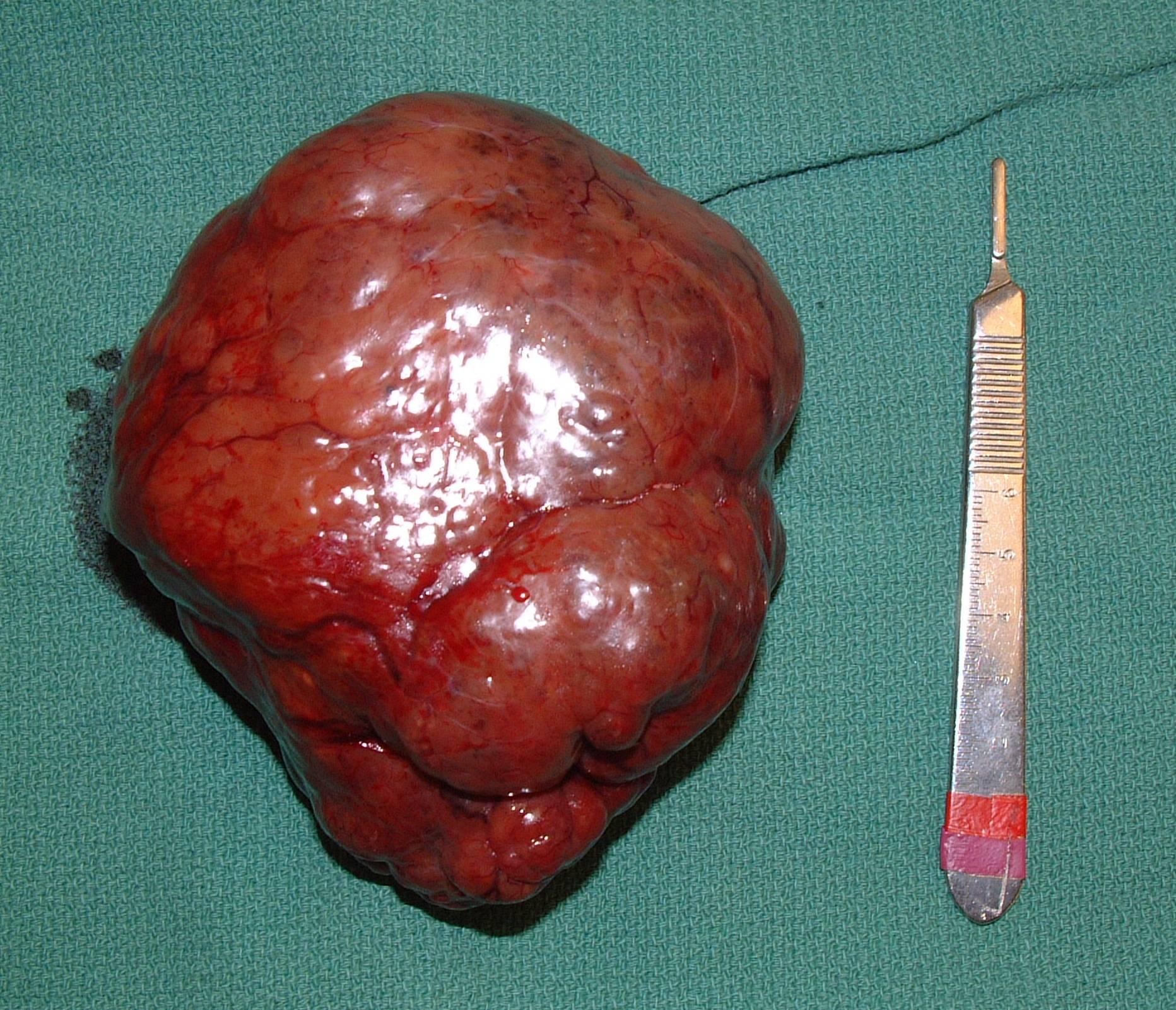 liver HCC massive 035 postop gross 190583.jpg
