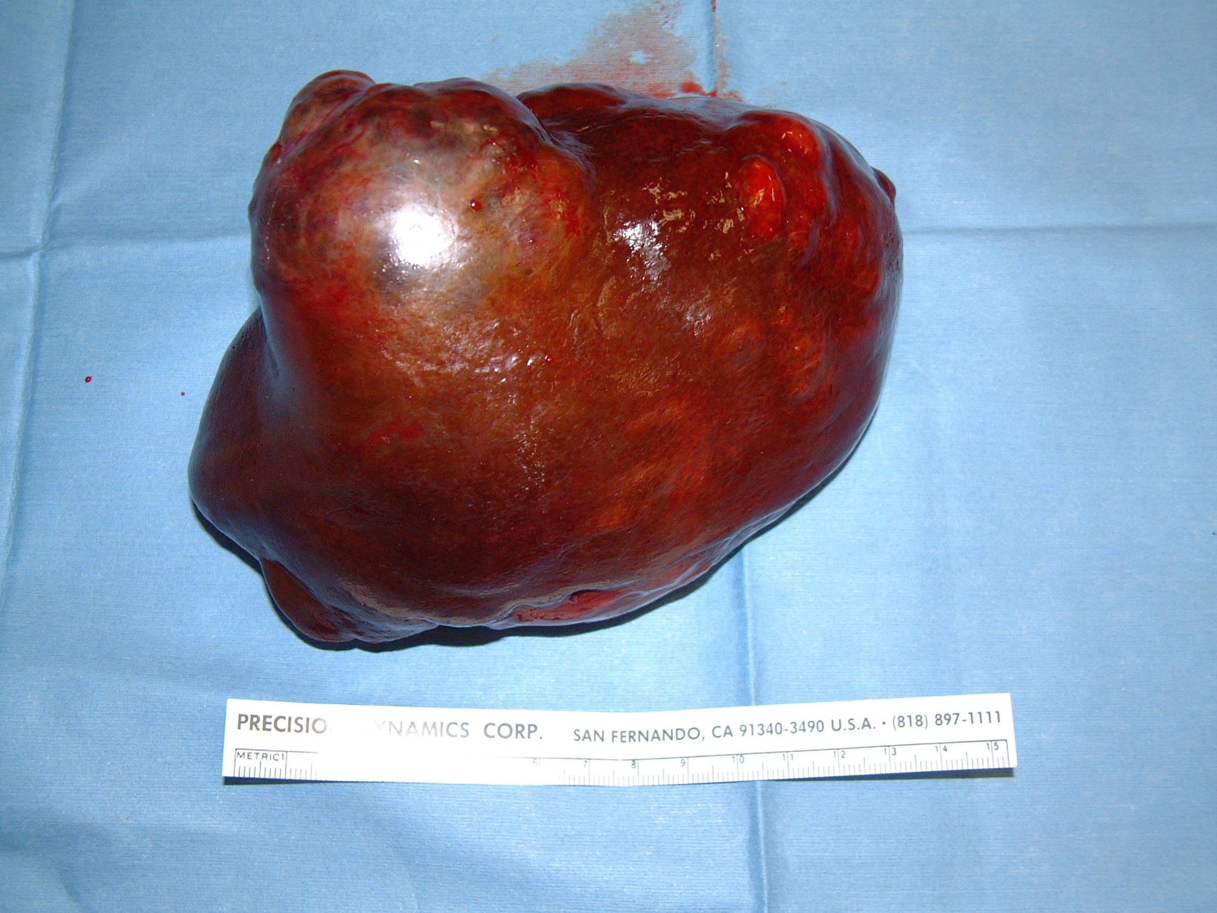 liver HCC massive 116 left lateral lobe postop gross 32761.JPG
