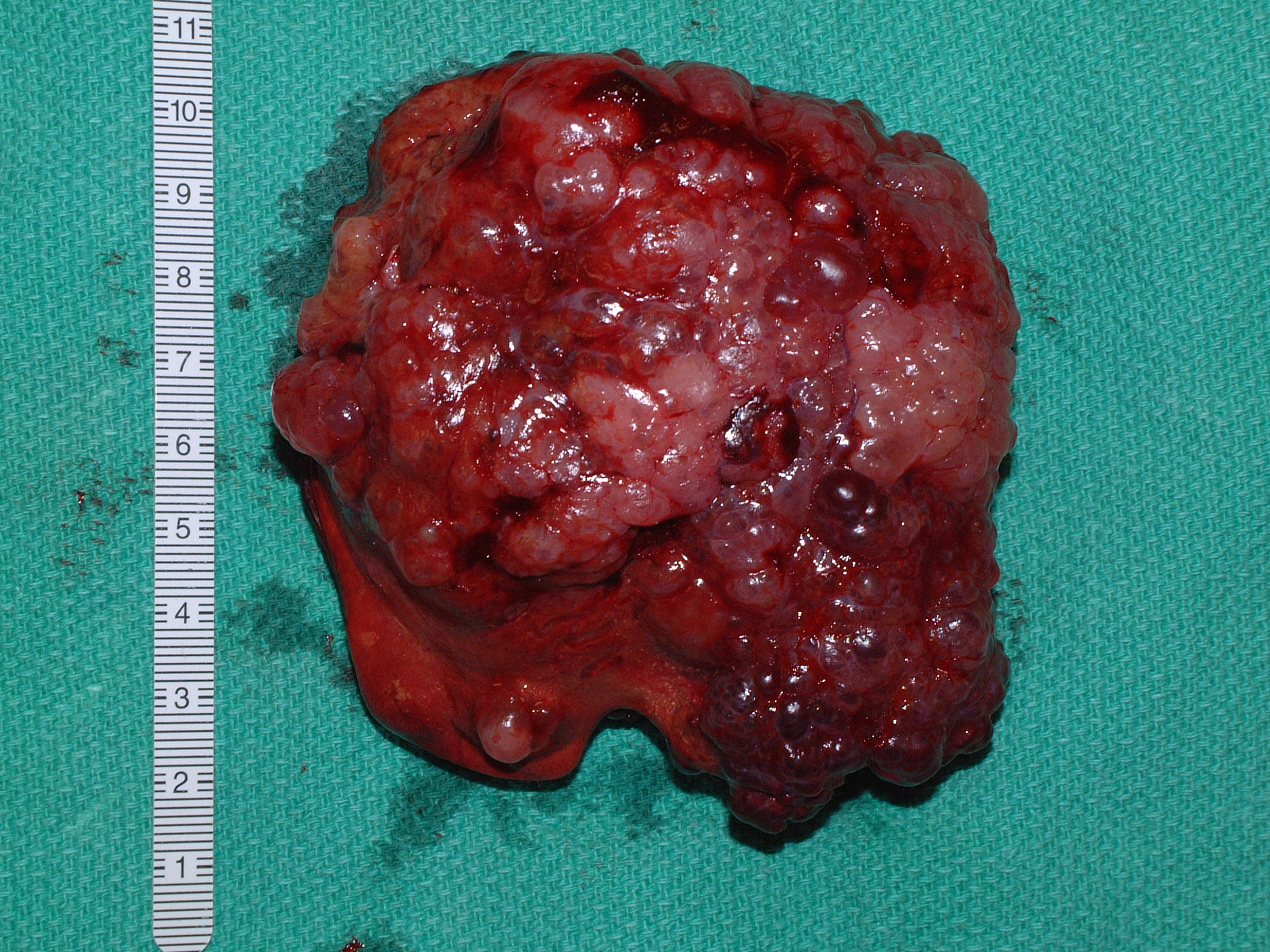 liver biliary cystadenoma 35 cat postop gross 39902.JPG