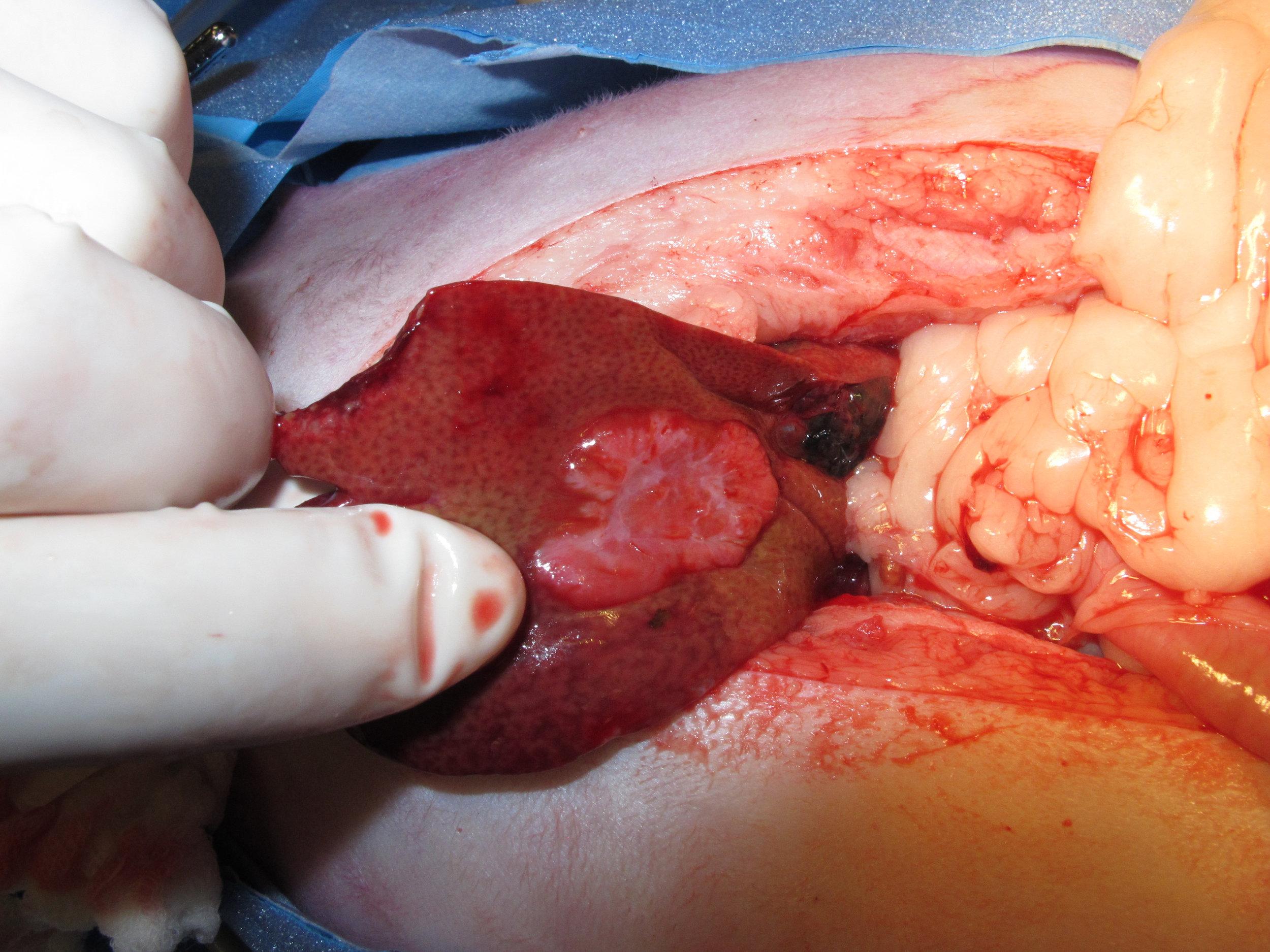 liver biliary cystadenoma 56 cat intraop 077755.jpg