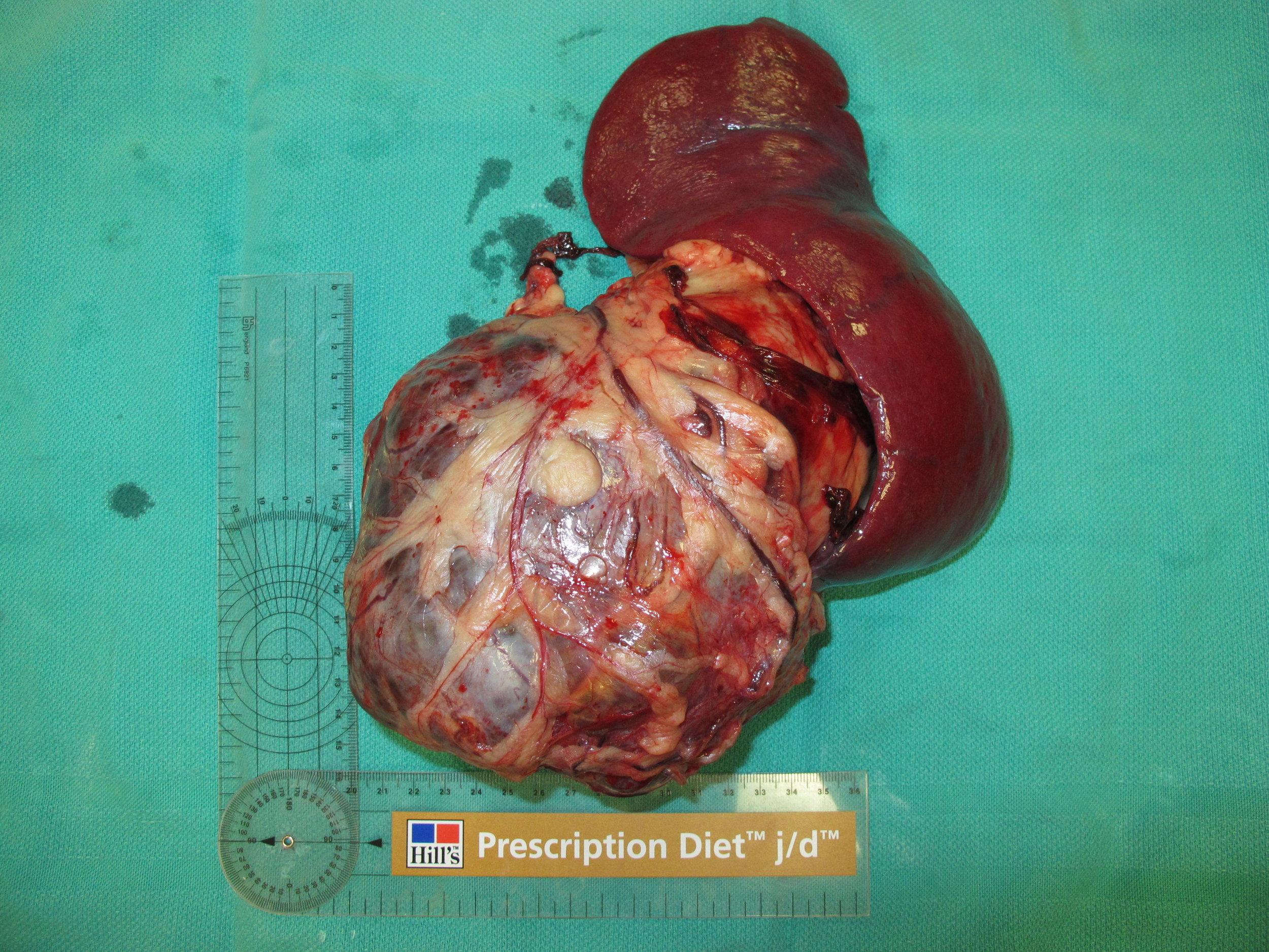 spleen hemangioma 59 postop gross 035079.JPG