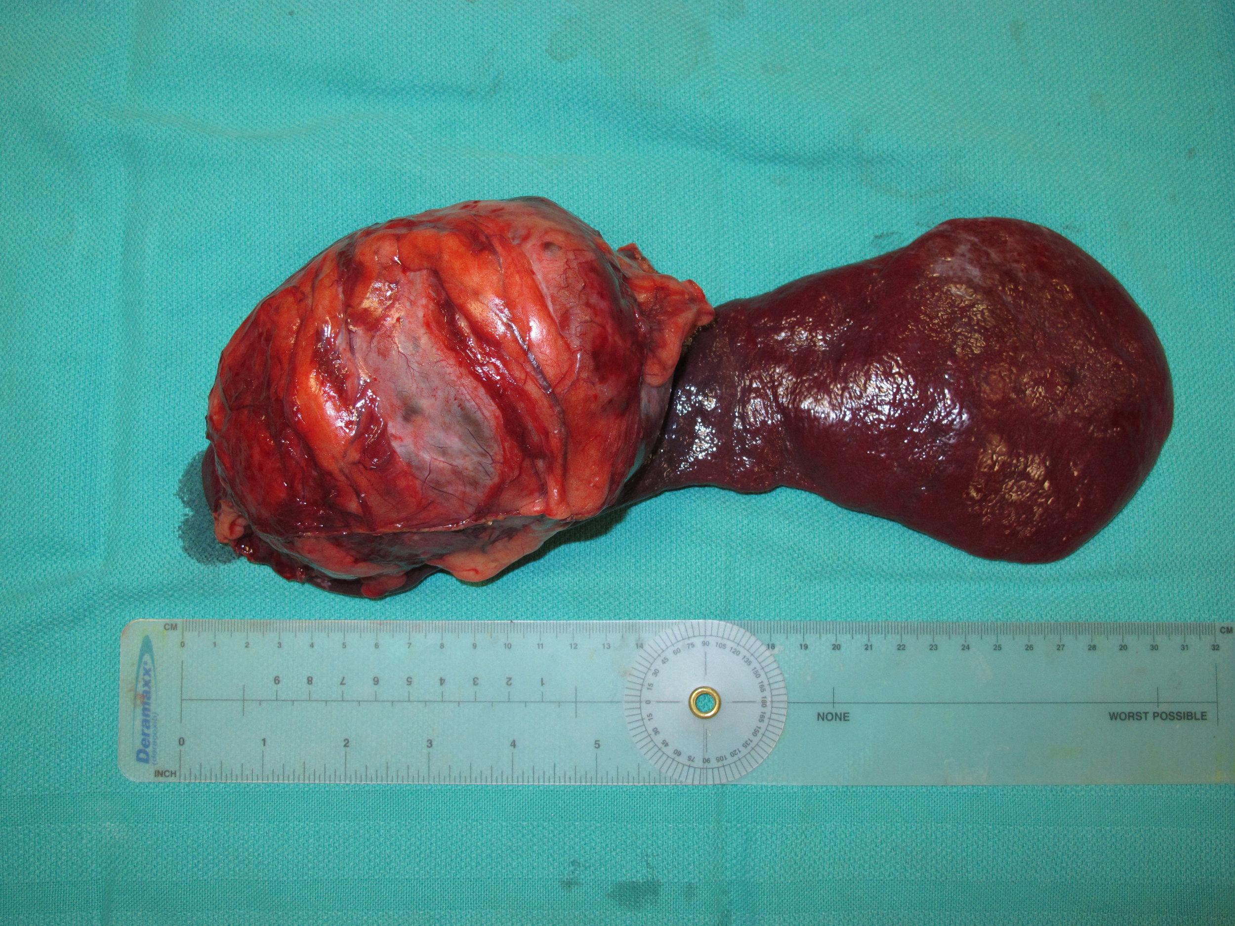 spleen hemangioma 73 postop gross 5642.jpg
