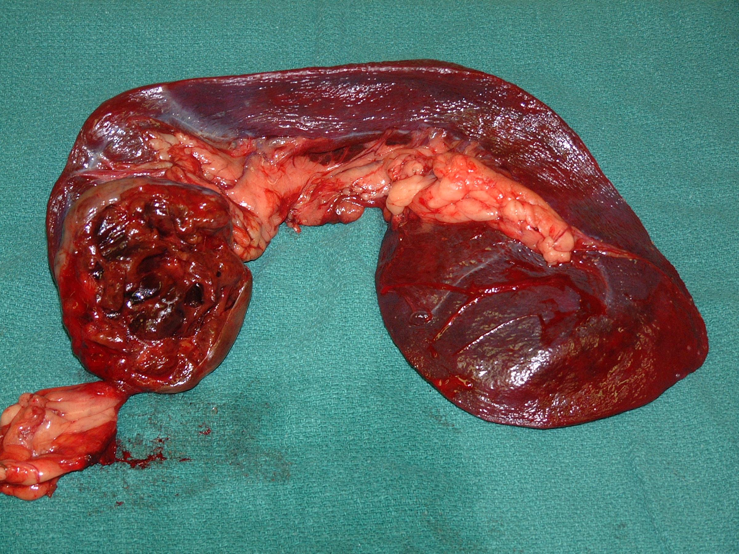 spleen HSA 039 postop gross 241805.JPG