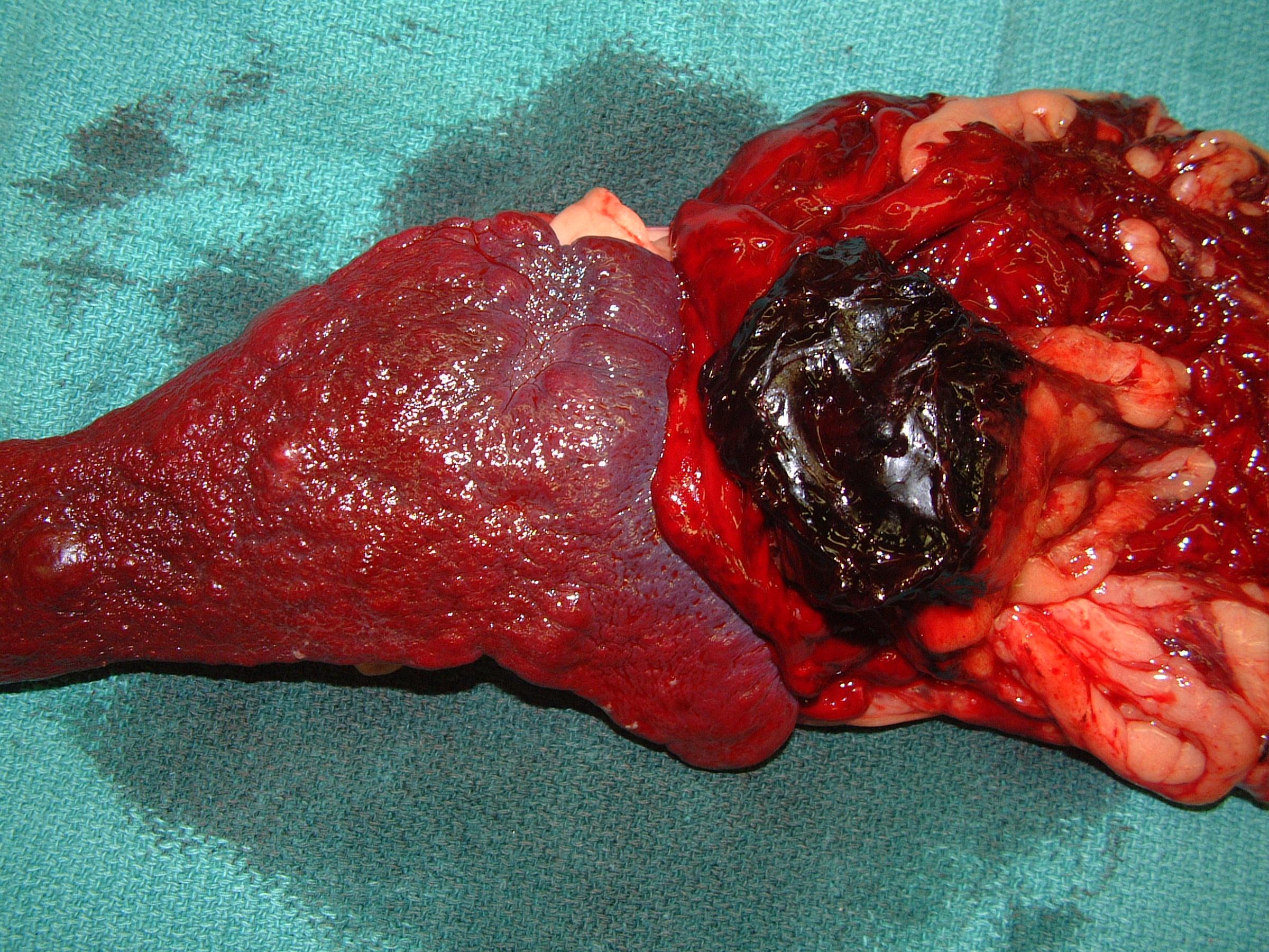 spleen HSA 017 postop gross 206731.jpg
