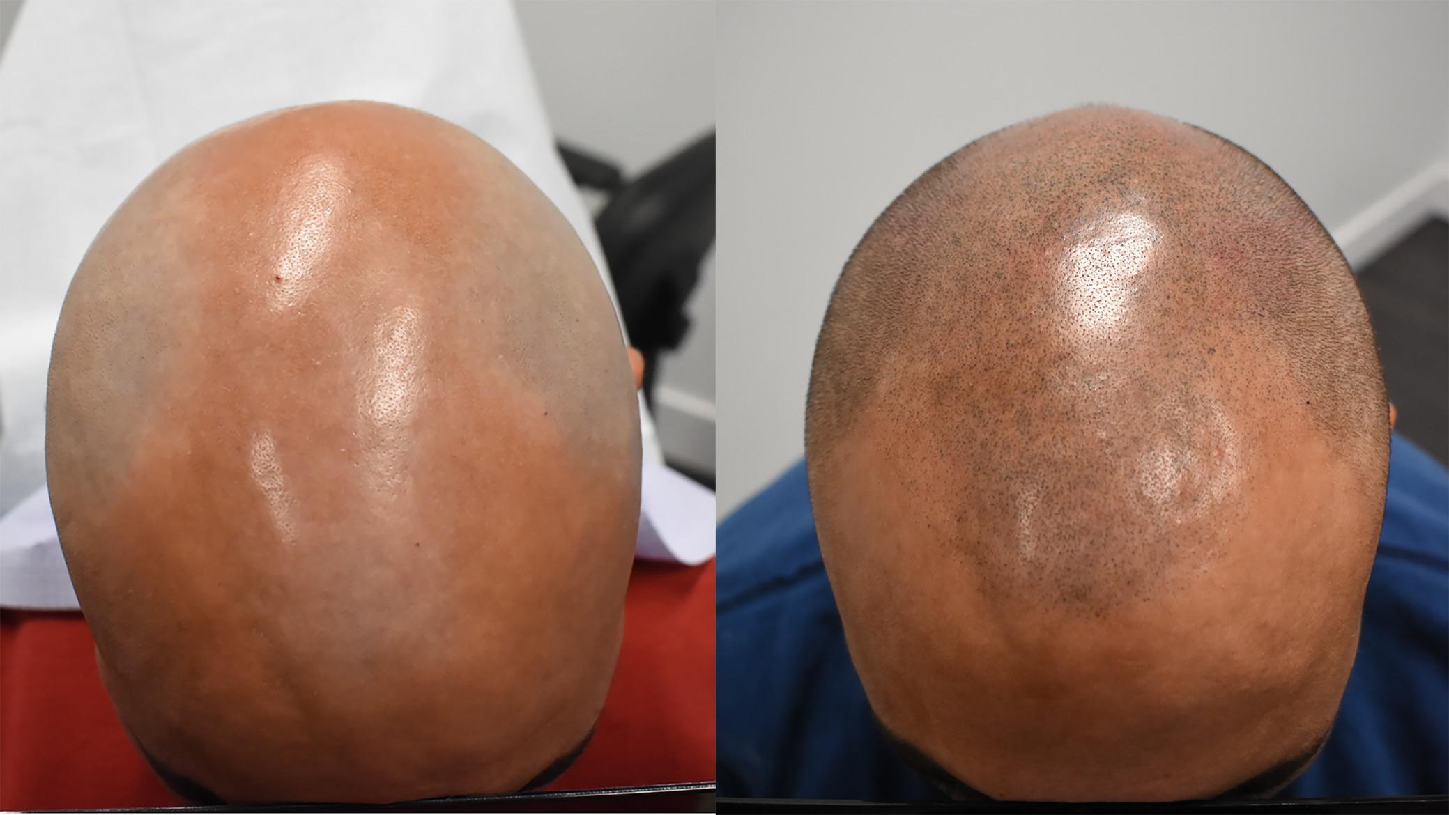 Hair loss saskatoon