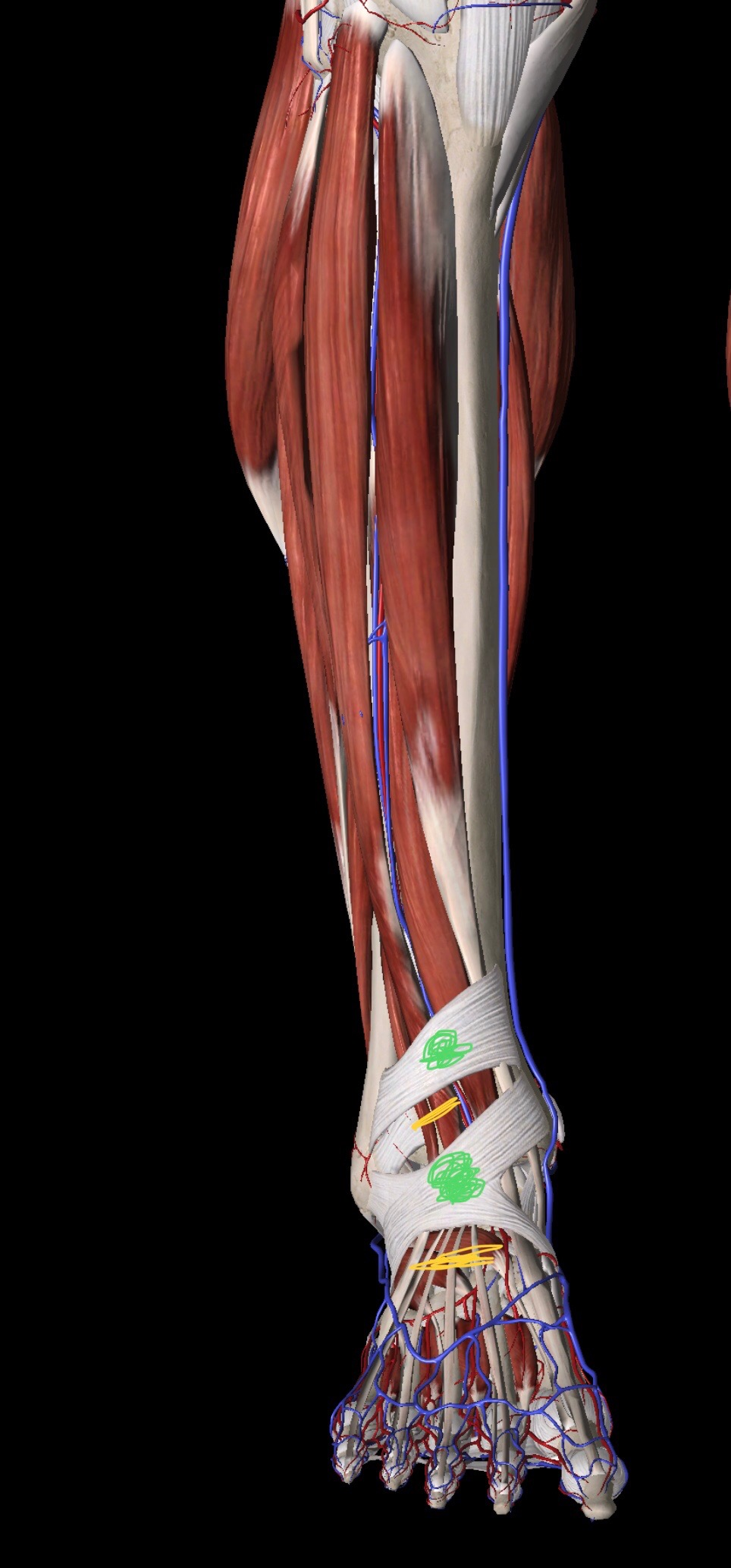 Image Showing some of the bones, muscles, tendons and ligaments in the foot and their very close relationship to each other.  An example of the fascial junctions mentioned above are coloured in green an the muscles and tendons running beneath it are coloured in yellow.