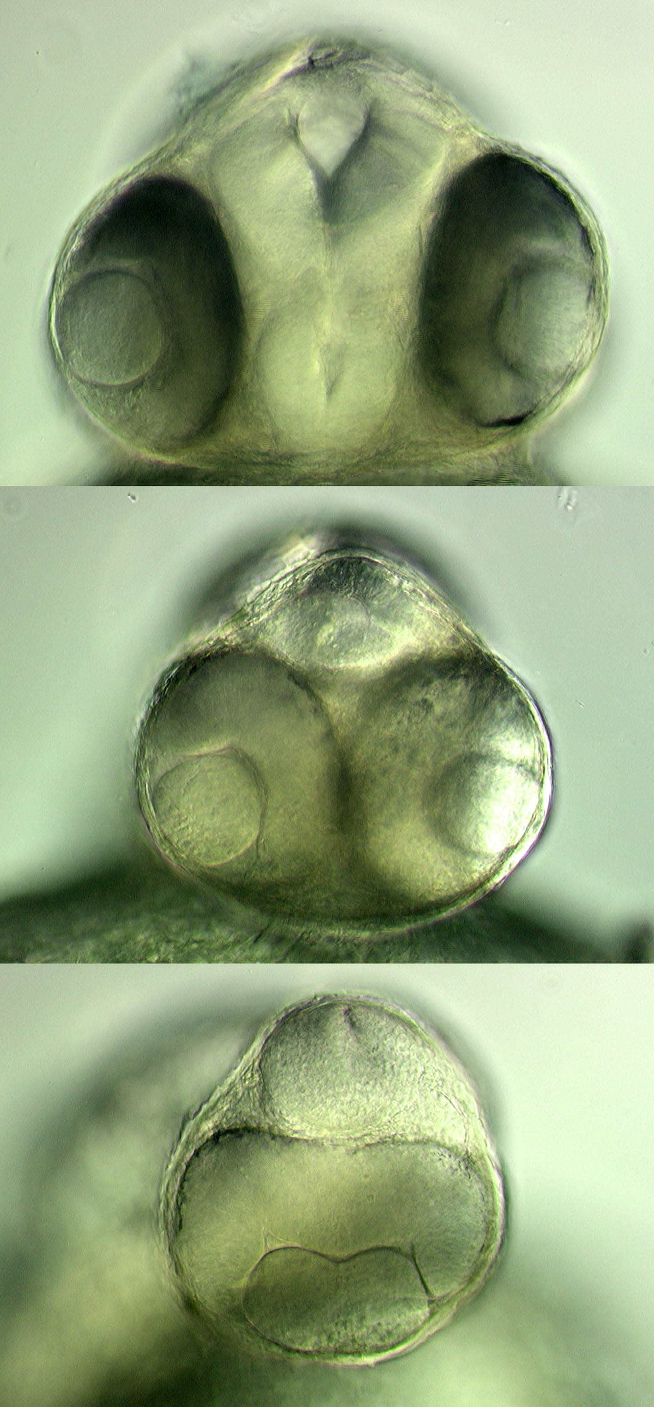 Frontal views of wildtype, Cyclops and one-eye-pinhead embryos