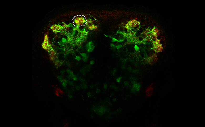 Olfactory glomeruli in a Tg(DLx4/6:GFP) embryo